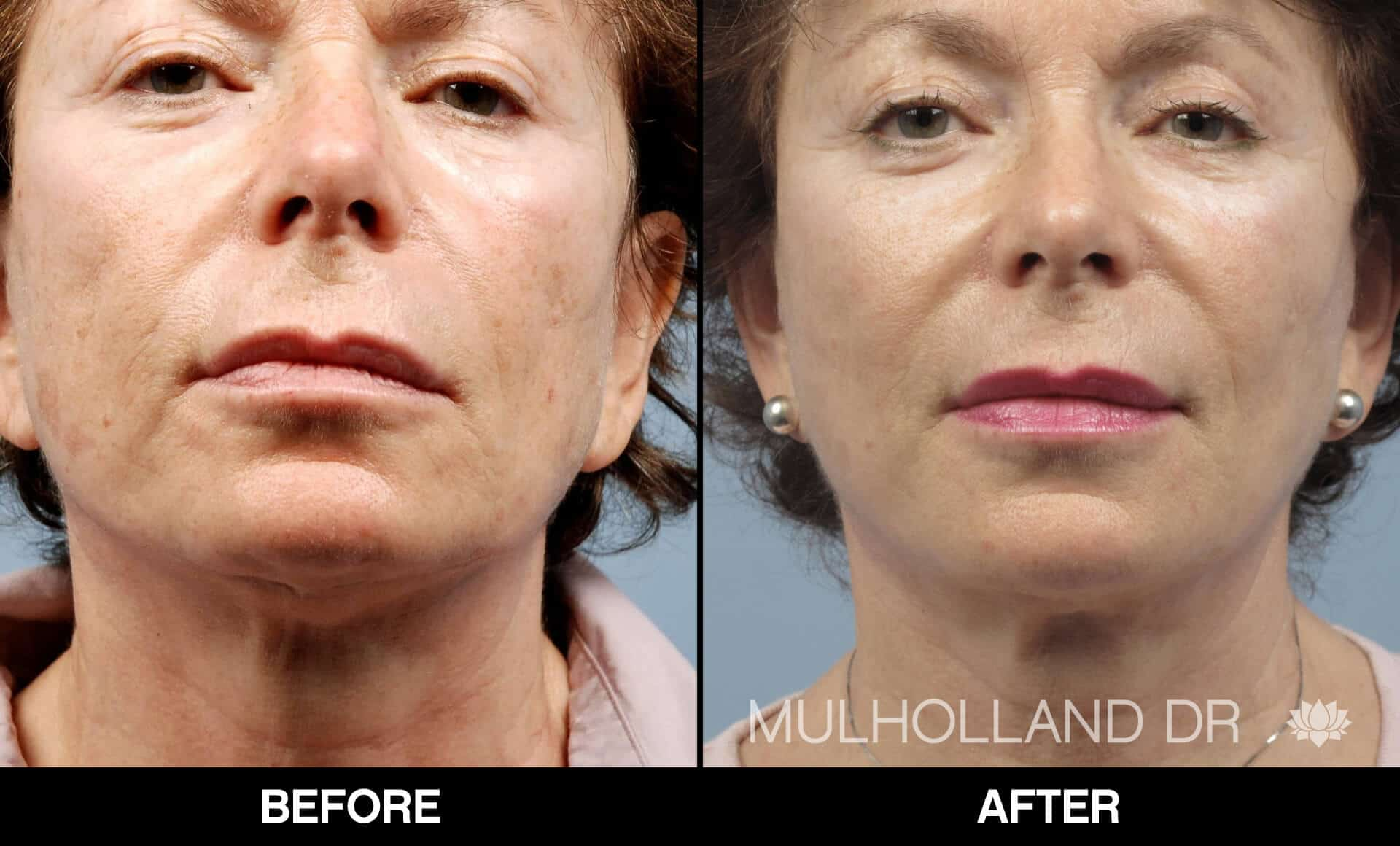 Cheek Lift - Before and After Gallery - Patient Photo 73