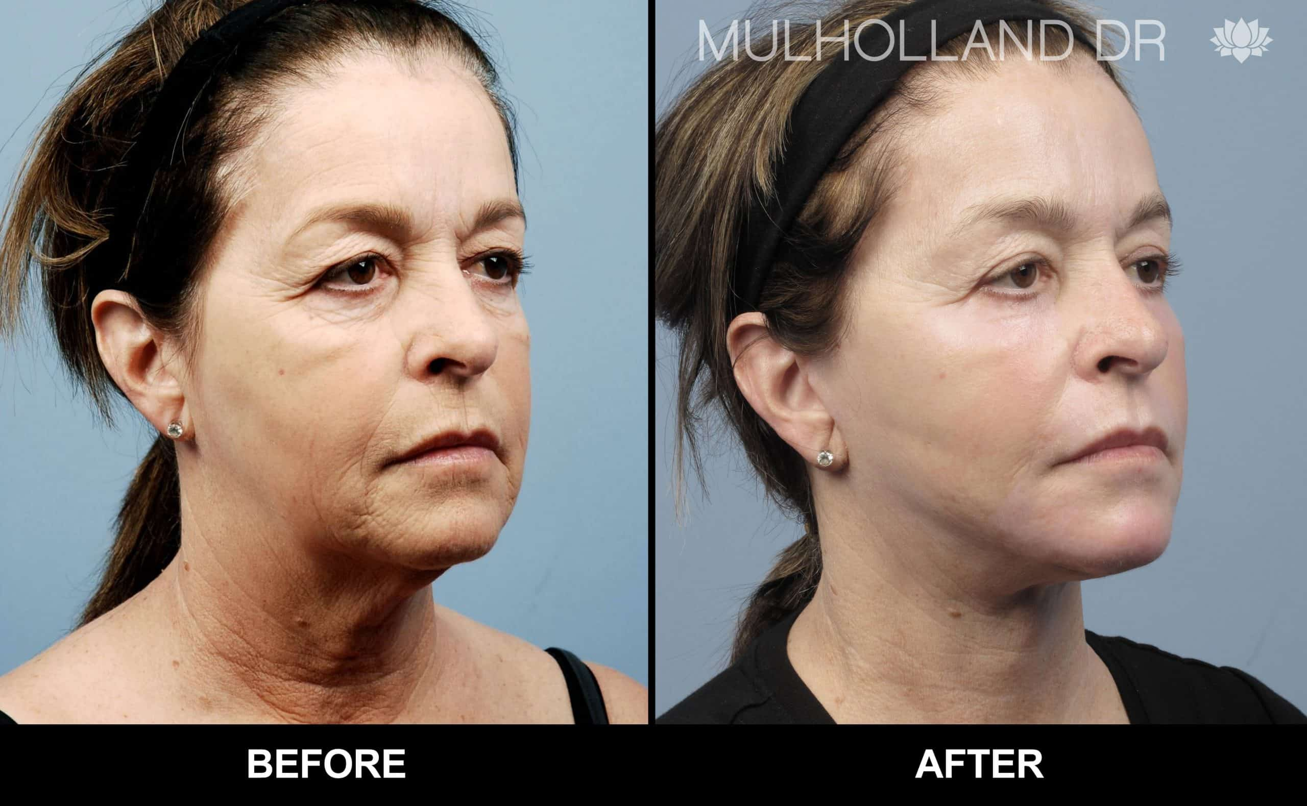 Cheek Lift - Before and After Gallery - Patient Photo 76