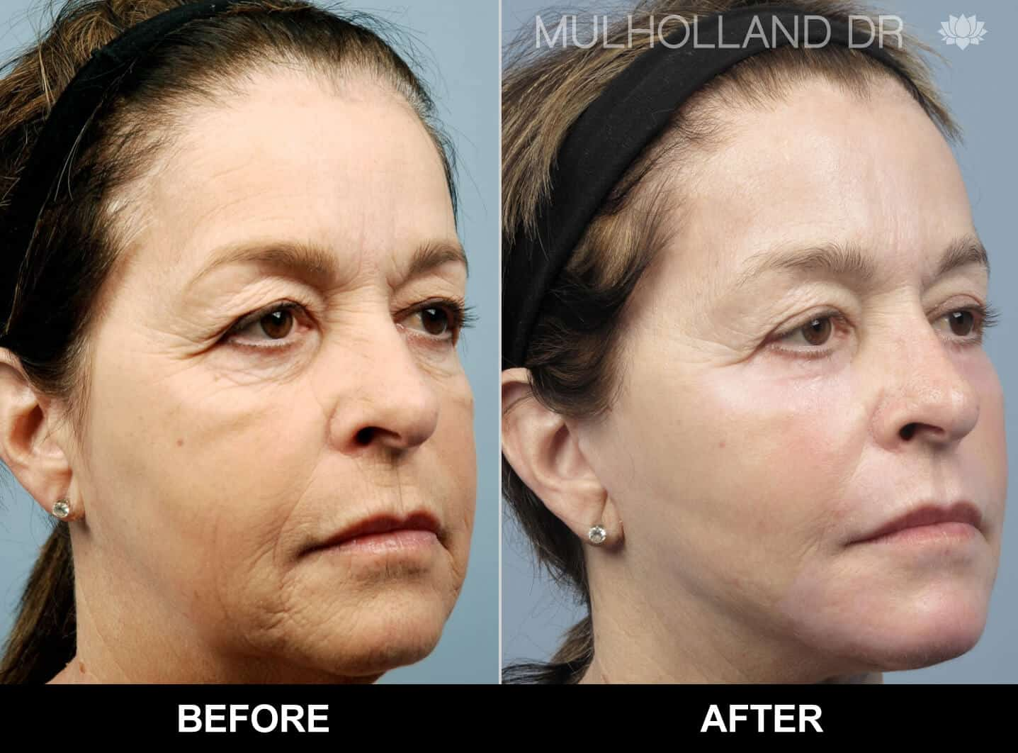 Cheek Lift - Before and After Gallery - Patient Photo 80