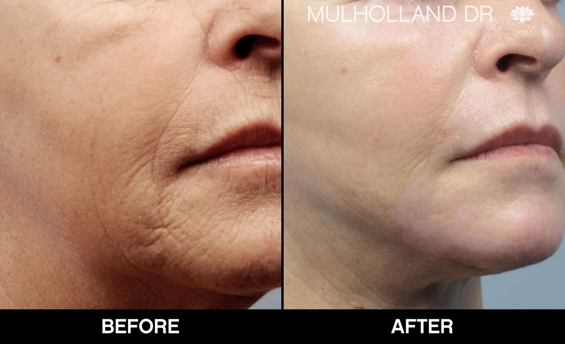 Cheek Lift - Before and After Gallery - Patient Photo 83