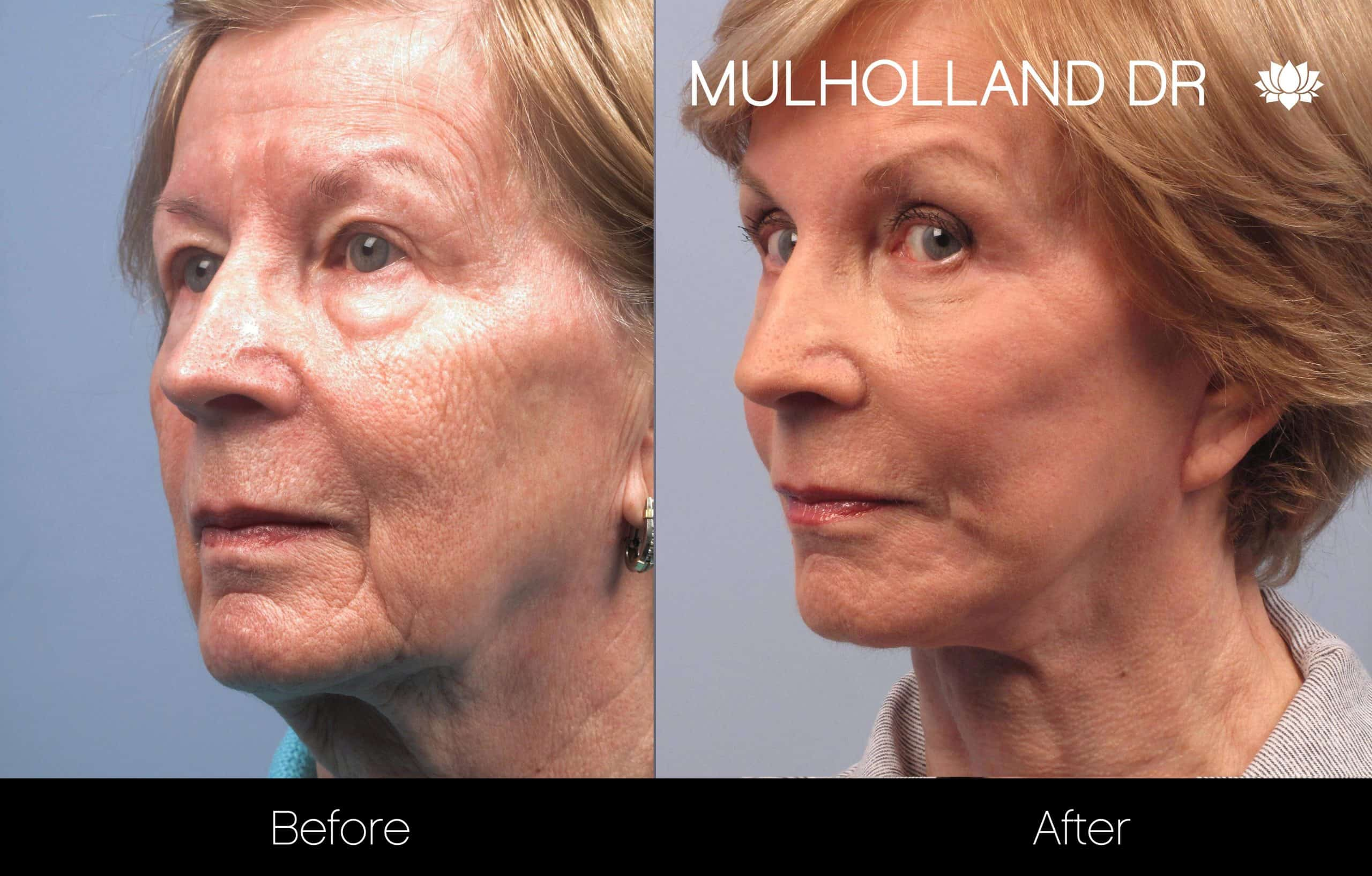 Cheek Lift - Before and After Gallery - Patient Photo 94
