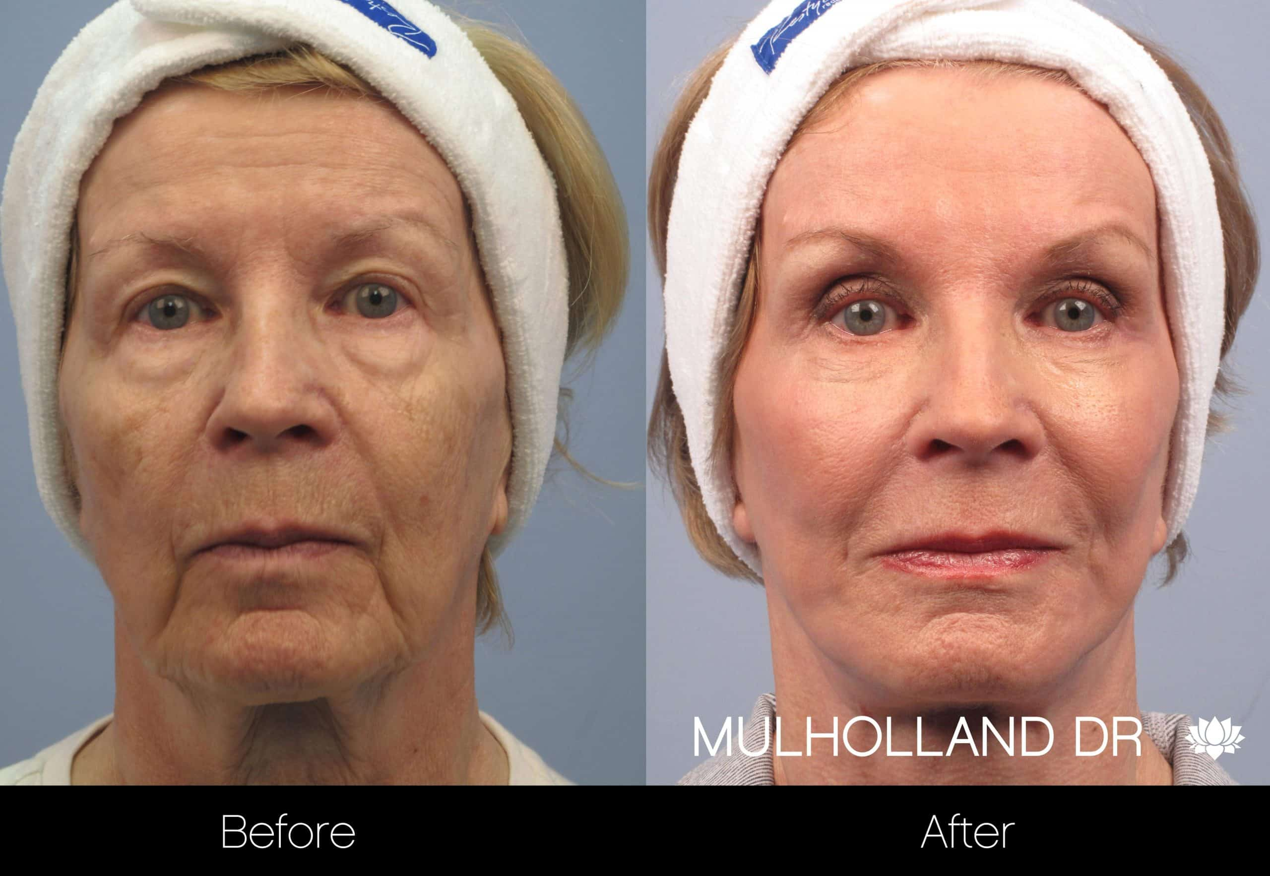 Cheek Lift - Before and After Gallery - Patient Photo 96