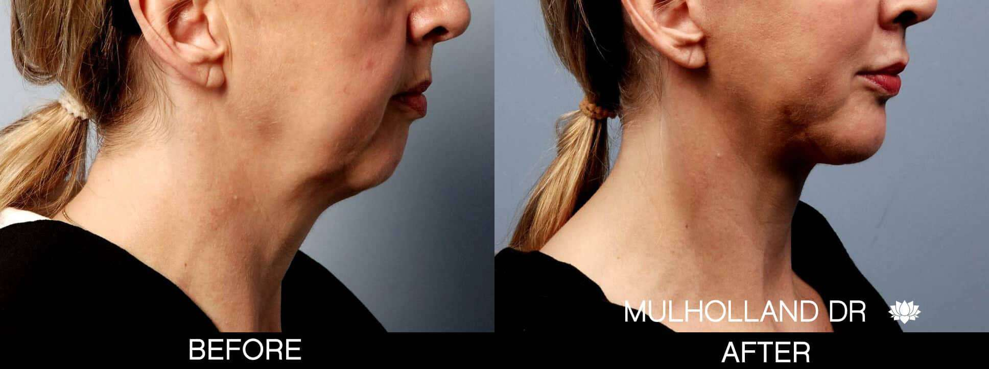 Chin Implants - Before and After Gallery - Patient Photo 3