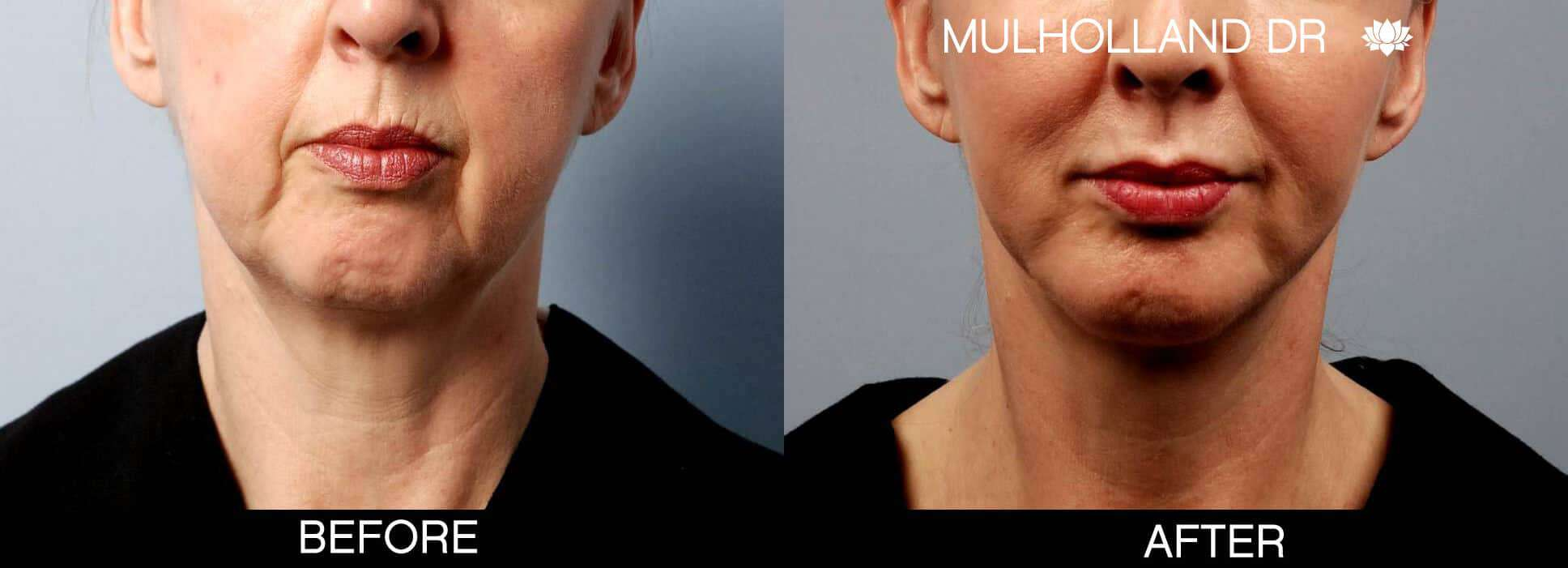 Chin Implants - Before and After Gallery - Patient Photo 5