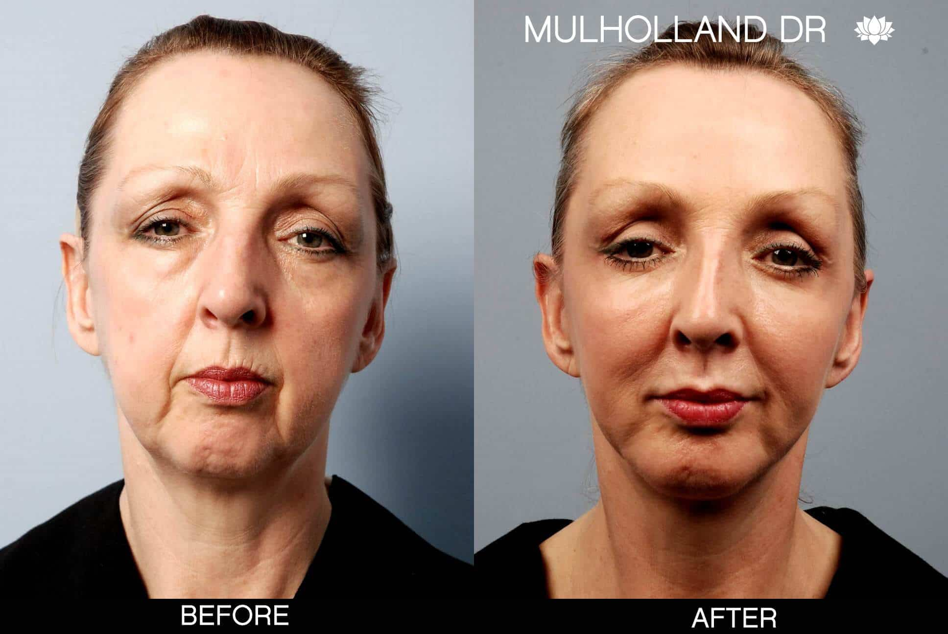 Facelift - Before and After Gallery - Patient Photo 14