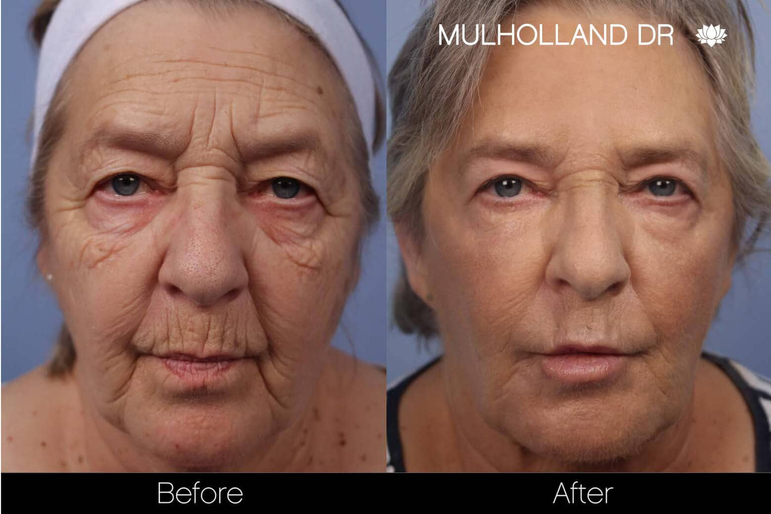 Facelift - Before and After Gallery - Patient Photo 19