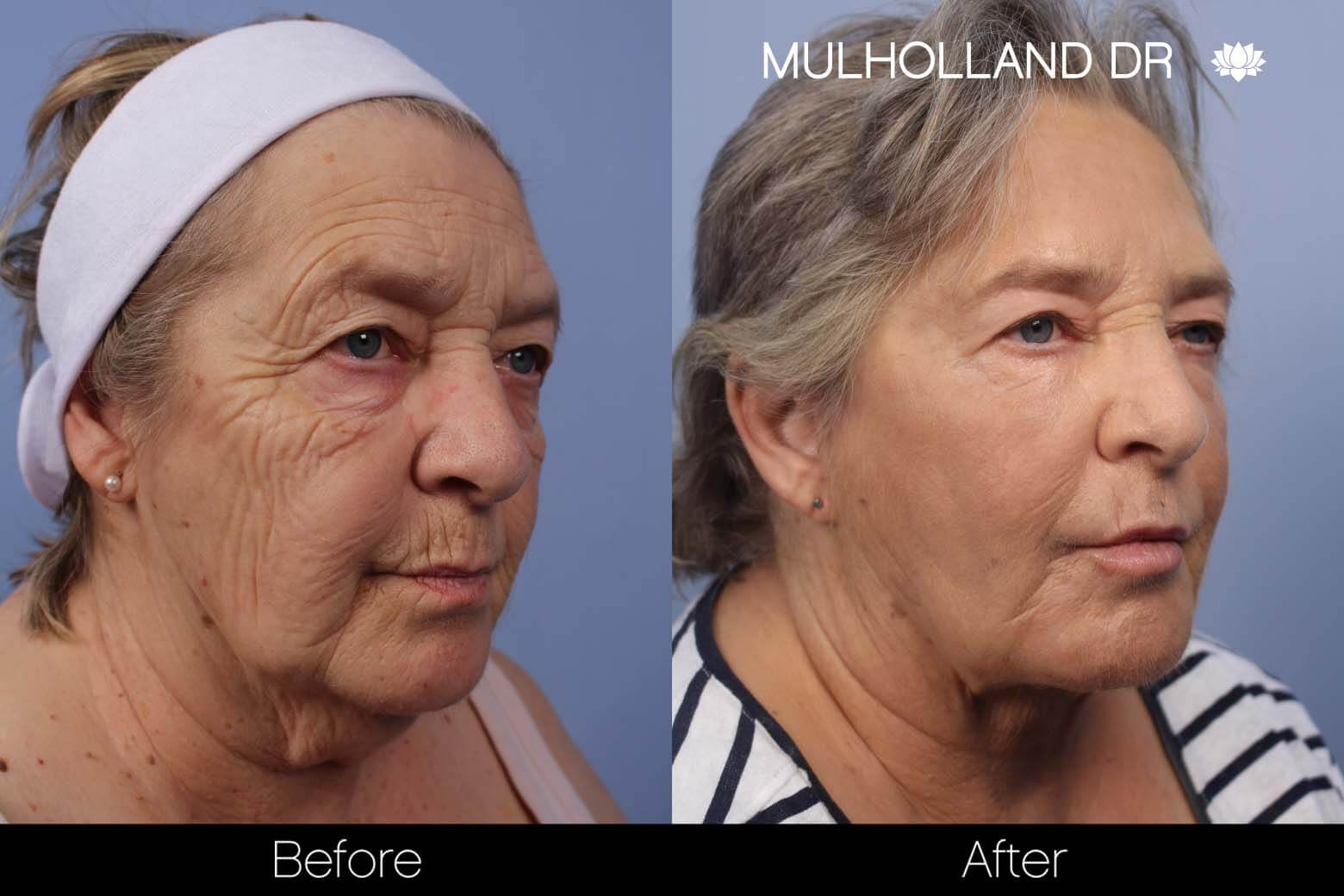 Facelift - Before and After Gallery - Patient Photo 23