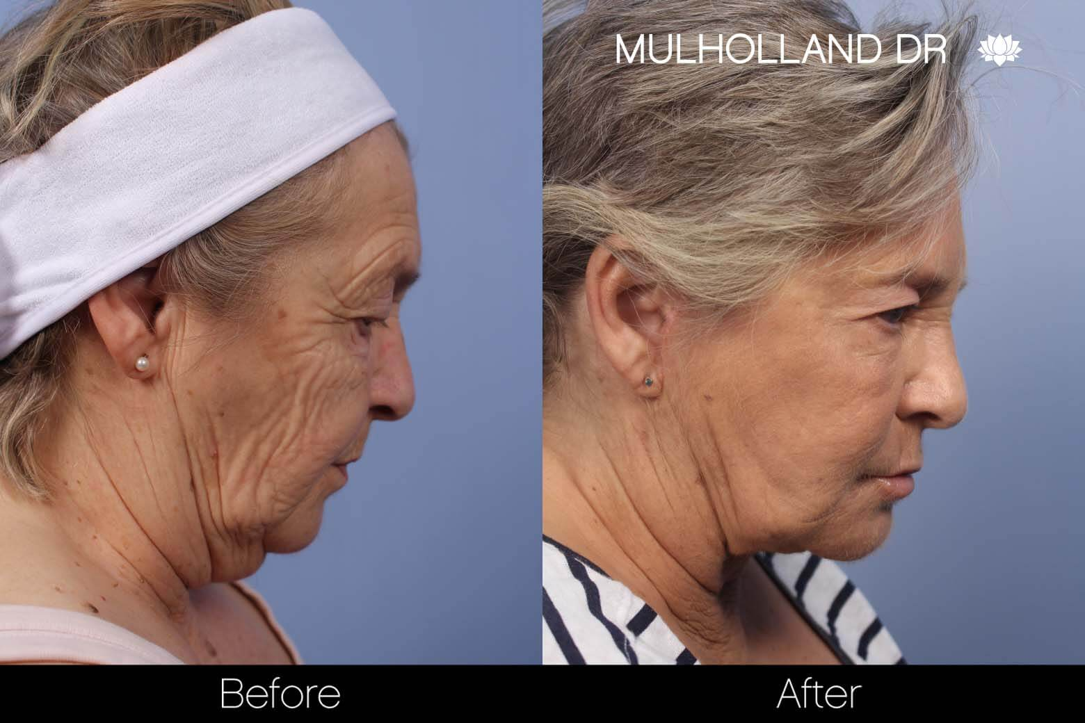 Facelift - Before and After Gallery - Patient Photo 25