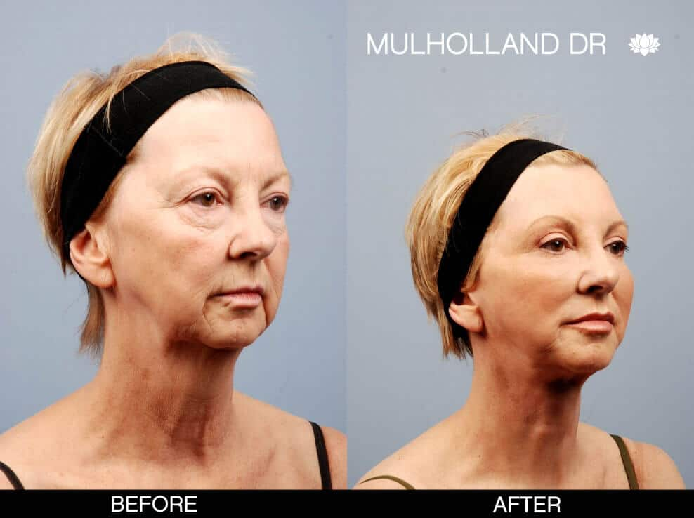 Facelift - Before and After Gallery - Patient Photo 4