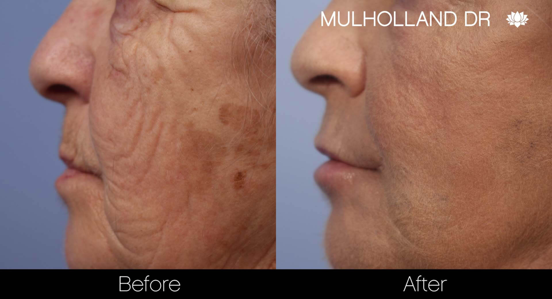 Facelift - Before and After Gallery - Patient Photo 41