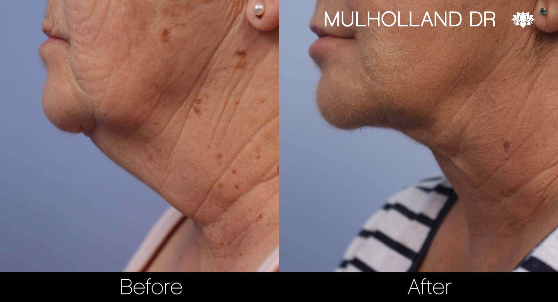 Facelift - Before and After Gallery - Patient Photo 42