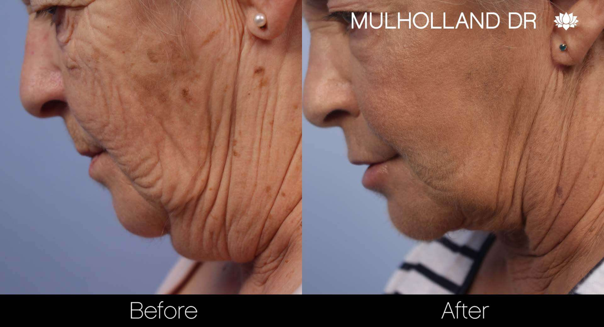 Facelift - Before and After Gallery - Patient Photo 44
