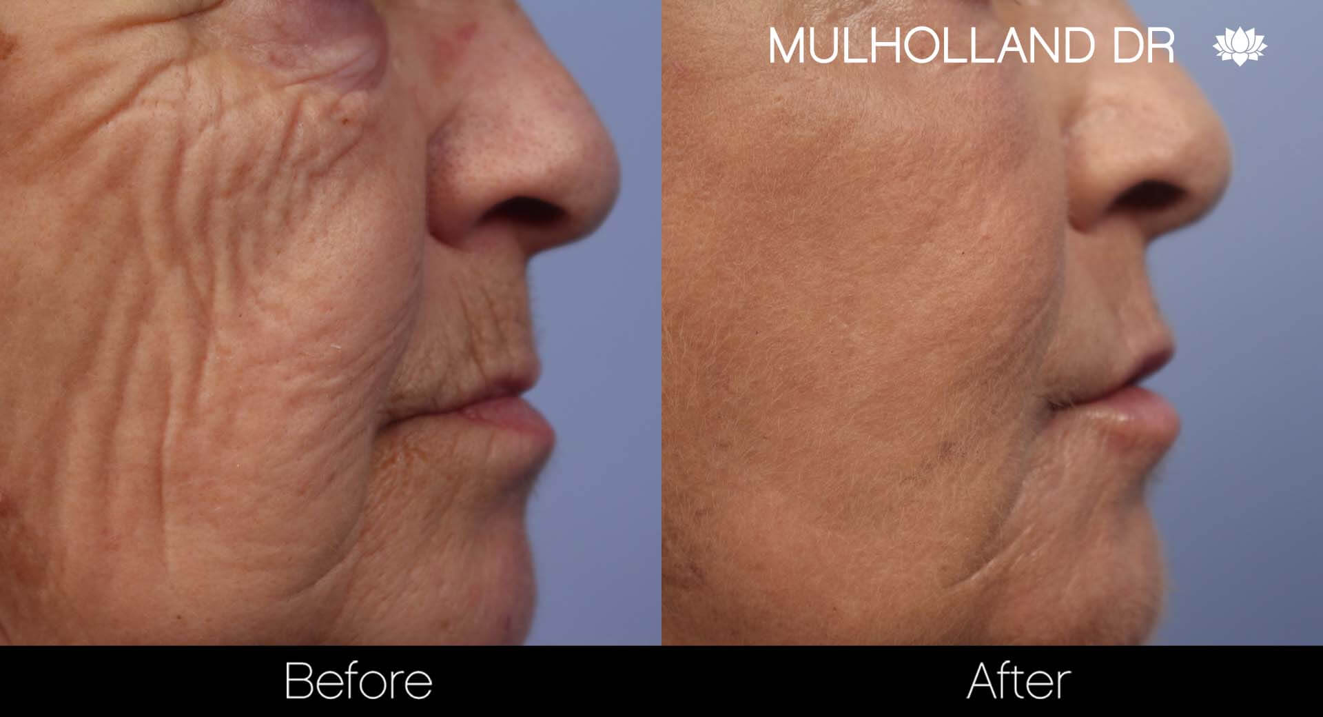 Facelift - Before and After Gallery - Patient Photo 47