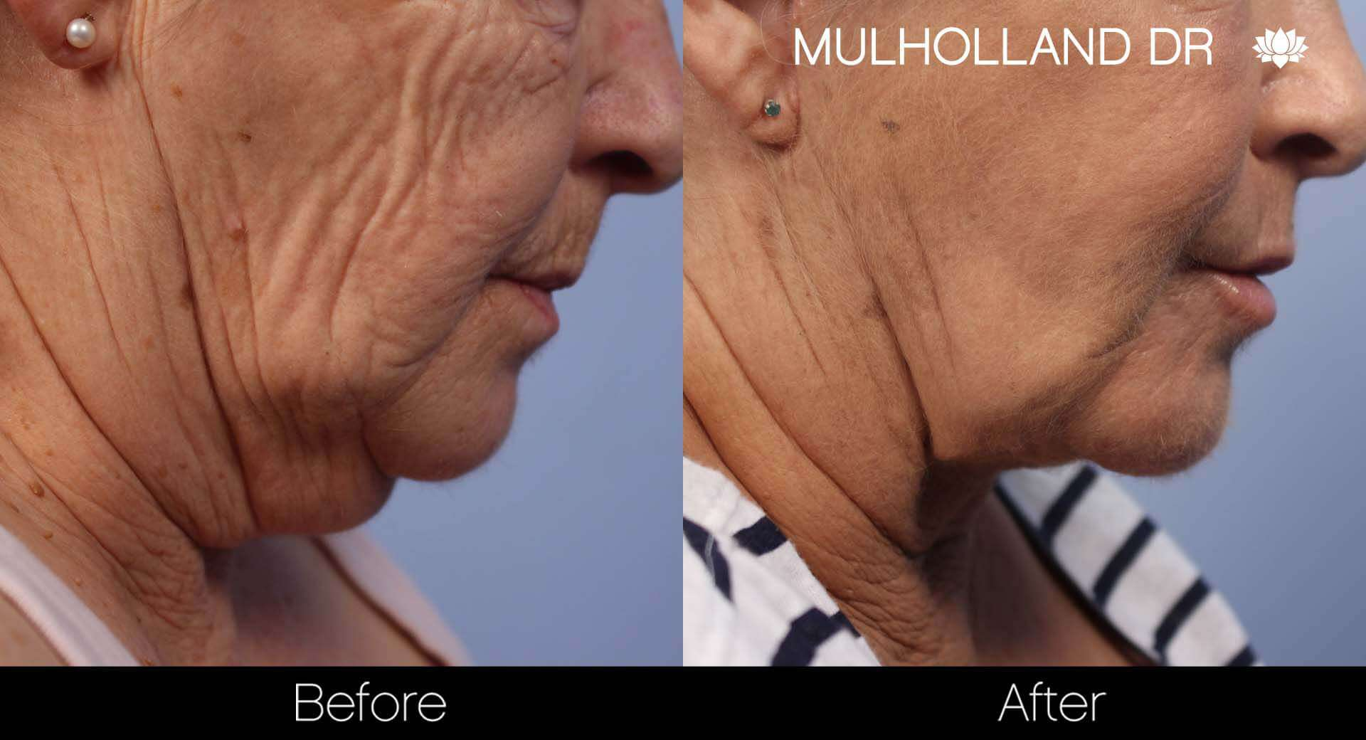 Facelift - Before and After Gallery - Patient Photo 49