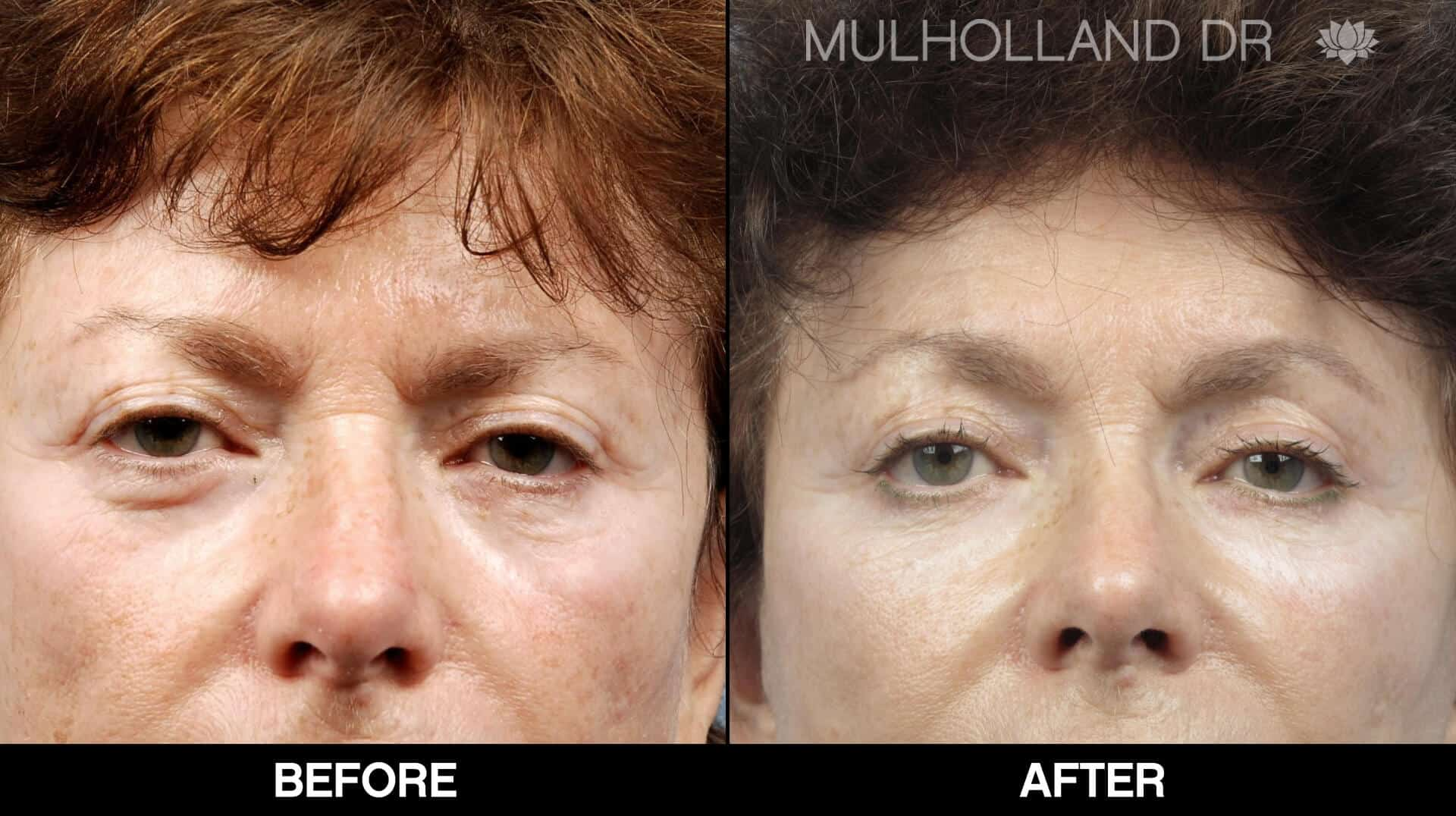 Facelift - Before and After Gallery - Patient Photo 74