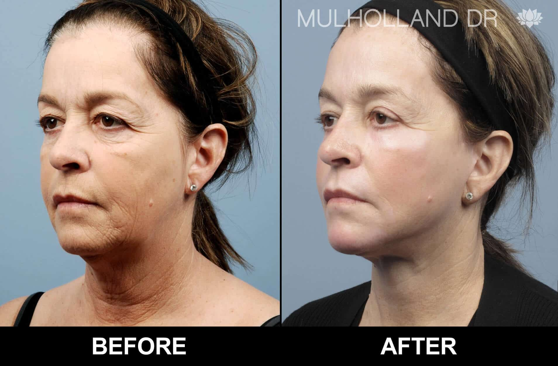 Facelift - Before and After Gallery - Patient Photo 75