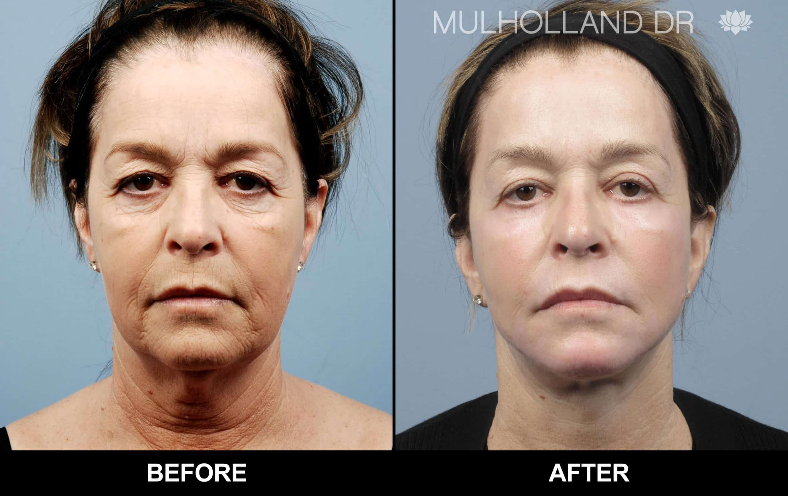 Facelift - Before and After Gallery - Patient Photo 77