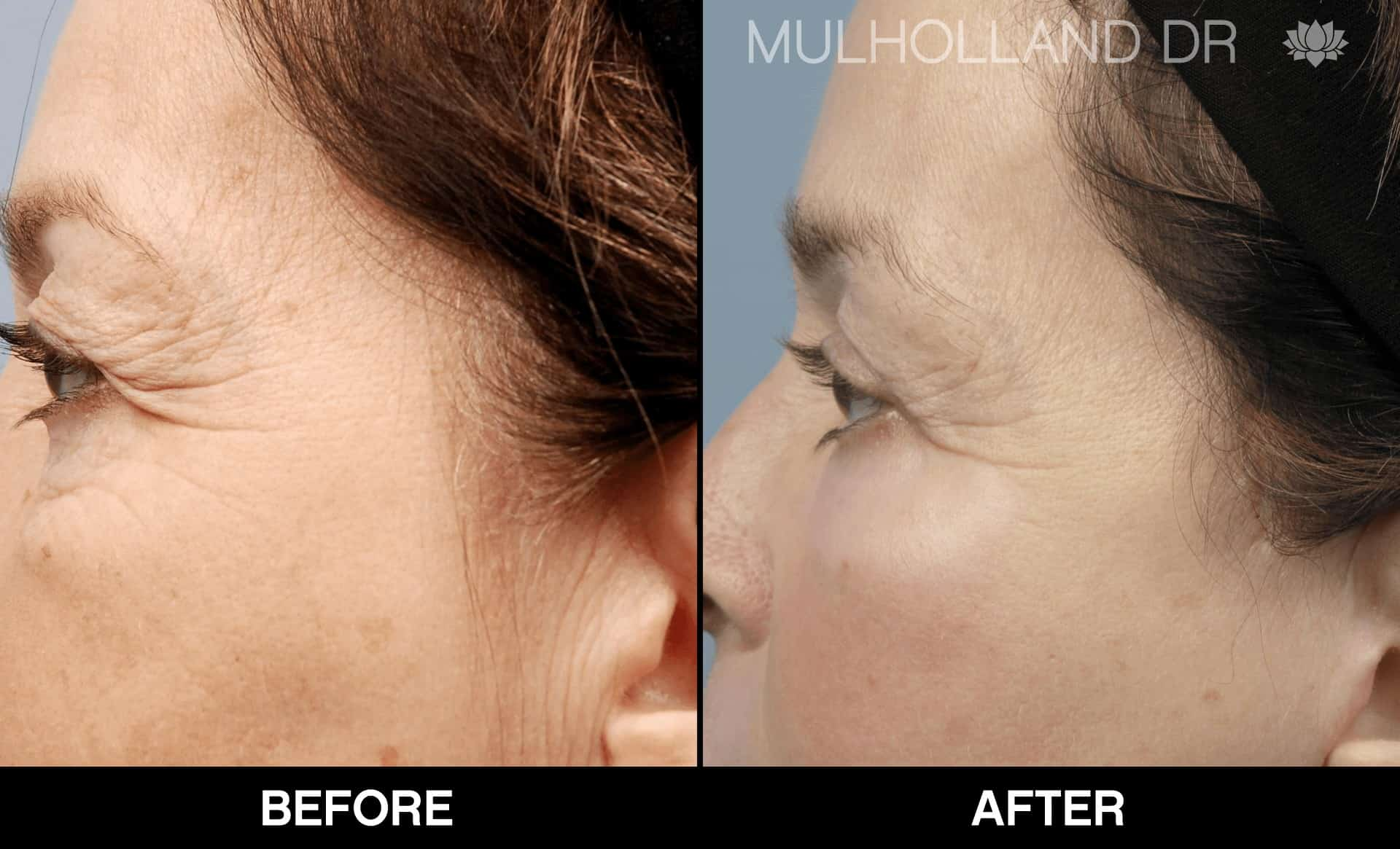 Facelift - Before and After Gallery - Patient Photo 81