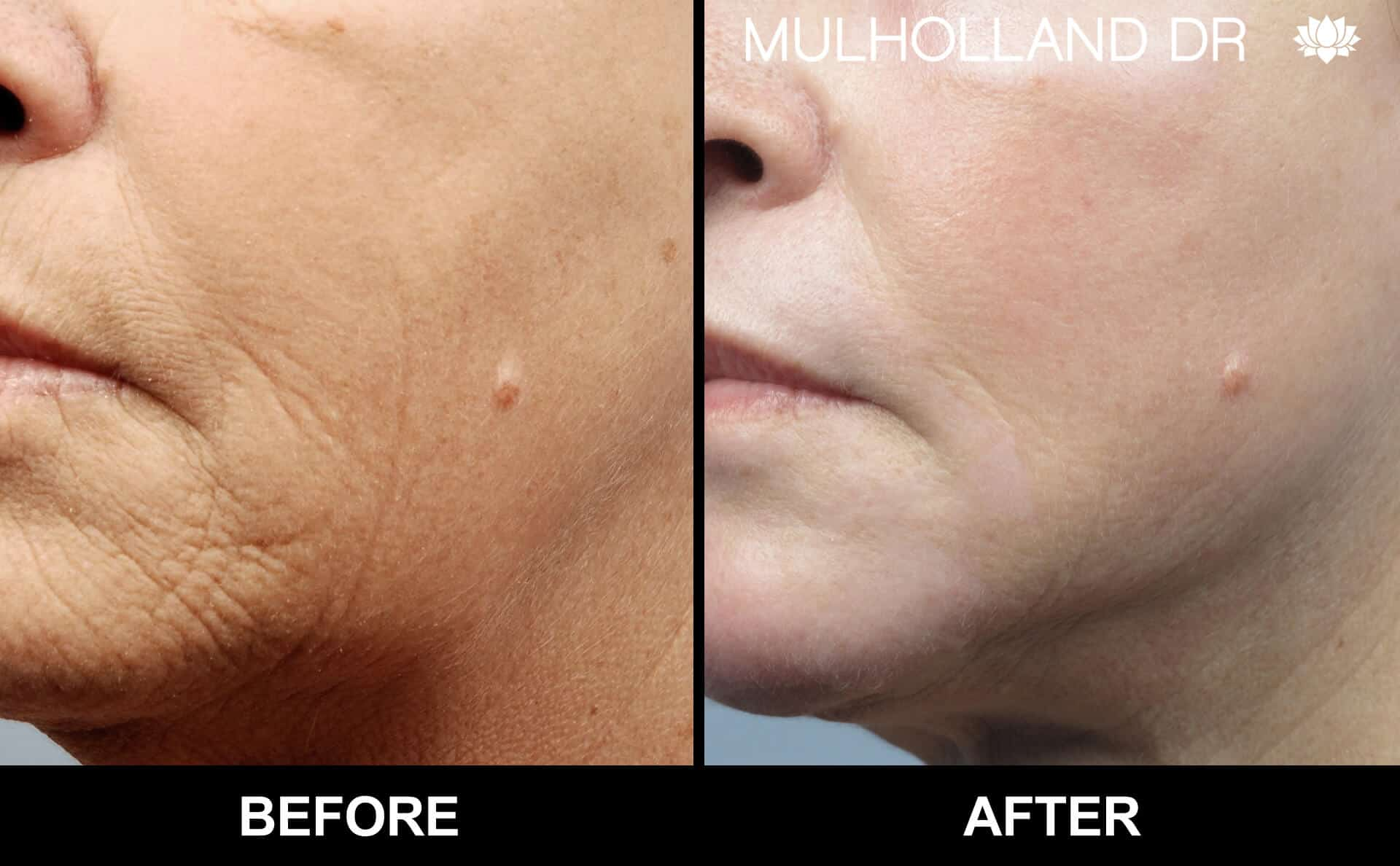 Facelift - Before and After Gallery - Patient Photo 82