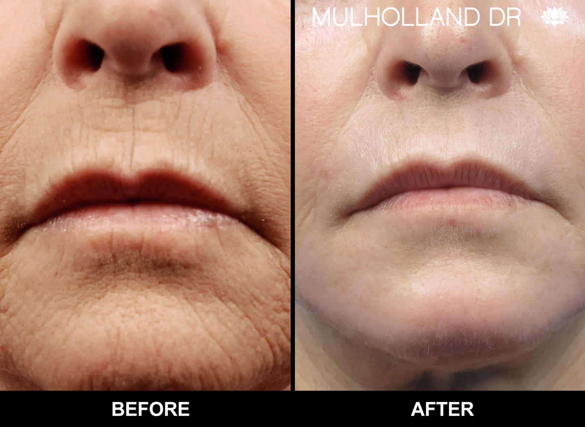 Facelift - Before and After Gallery - Patient Photo 85