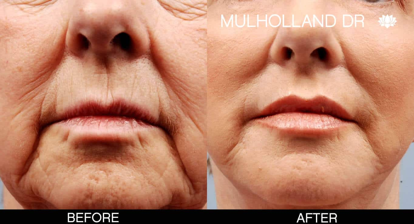Facelift - Before and After Gallery - Patient Photo 9