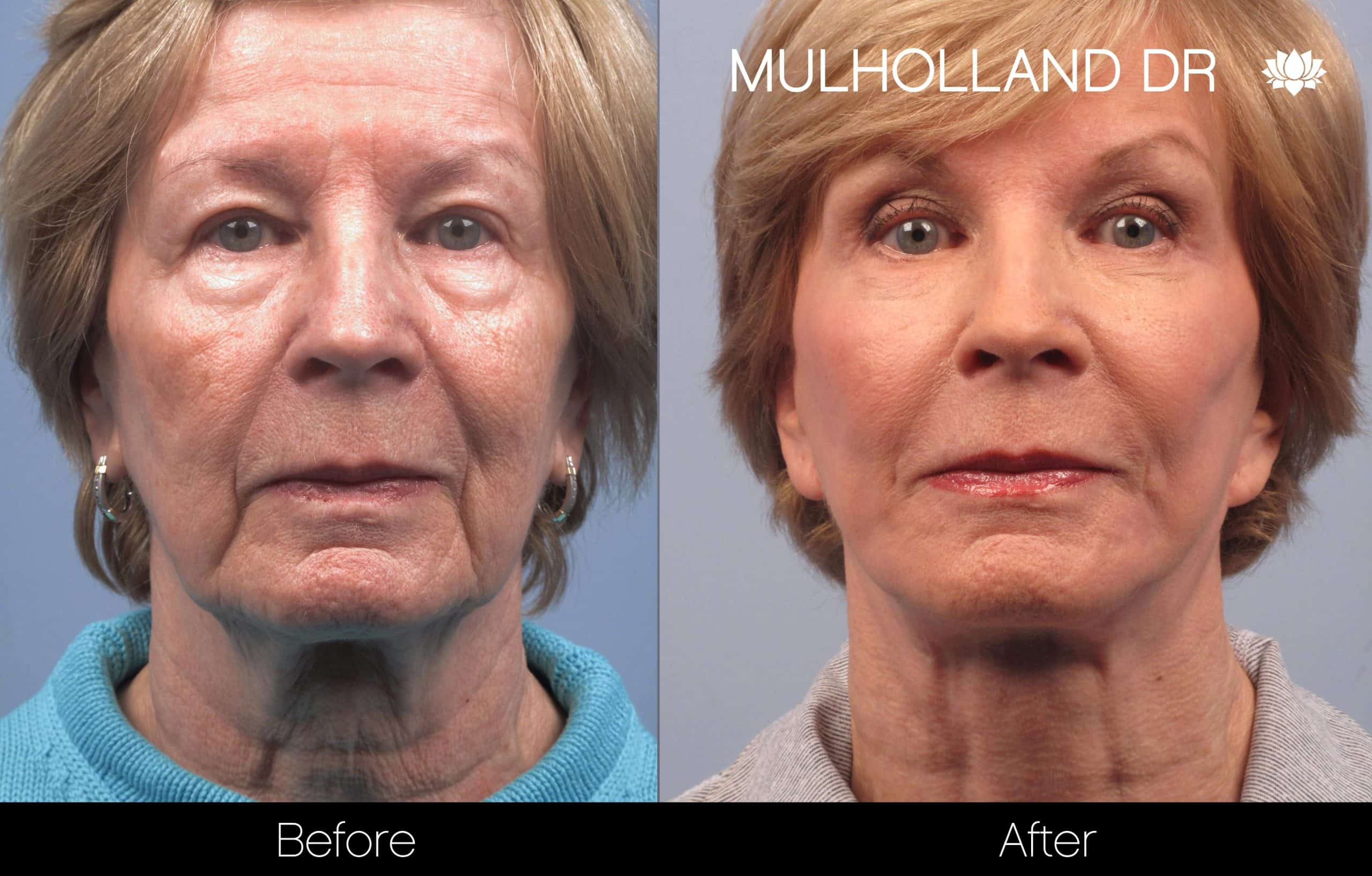 Facelift - Before and After Gallery - Patient Photo 92