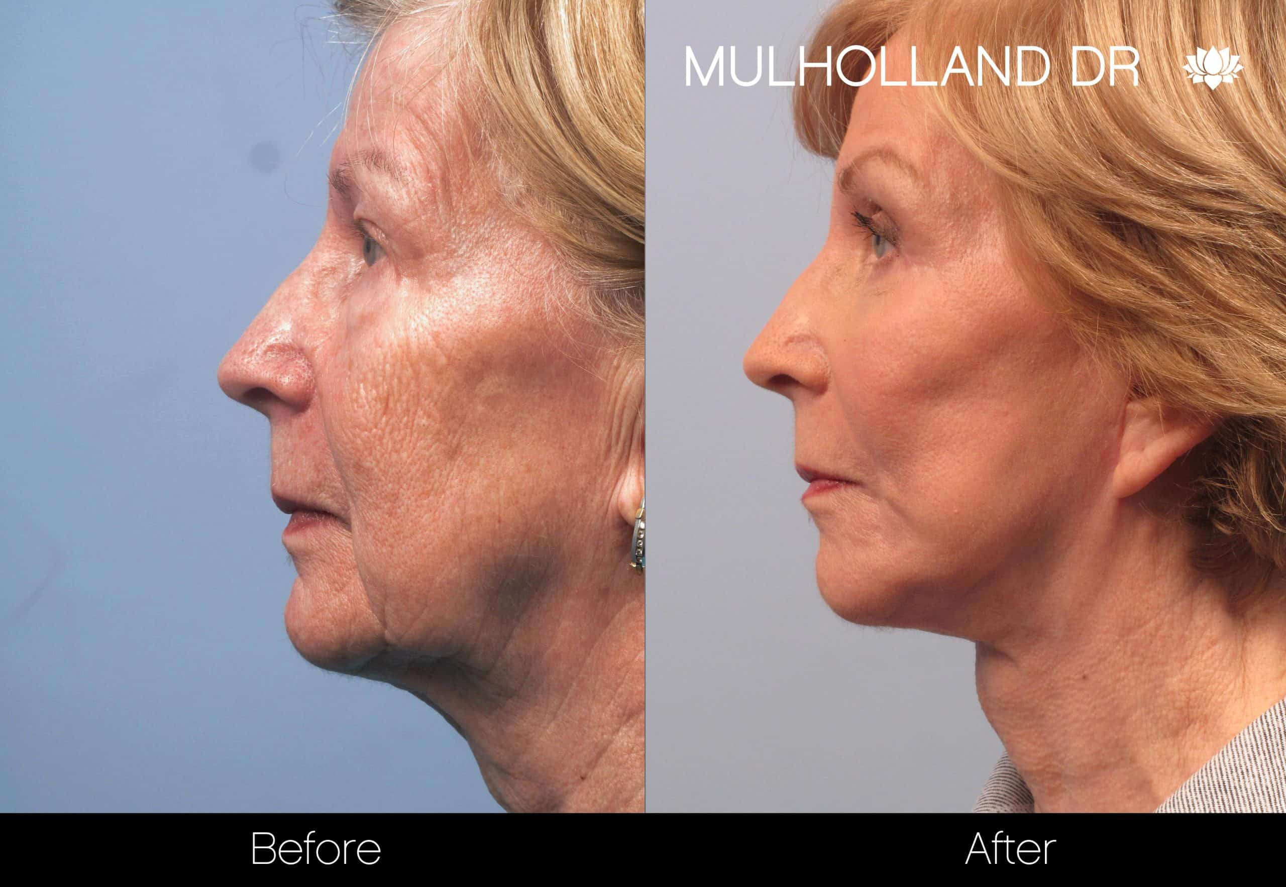 Facelift - Before and After Gallery - Patient Photo 95