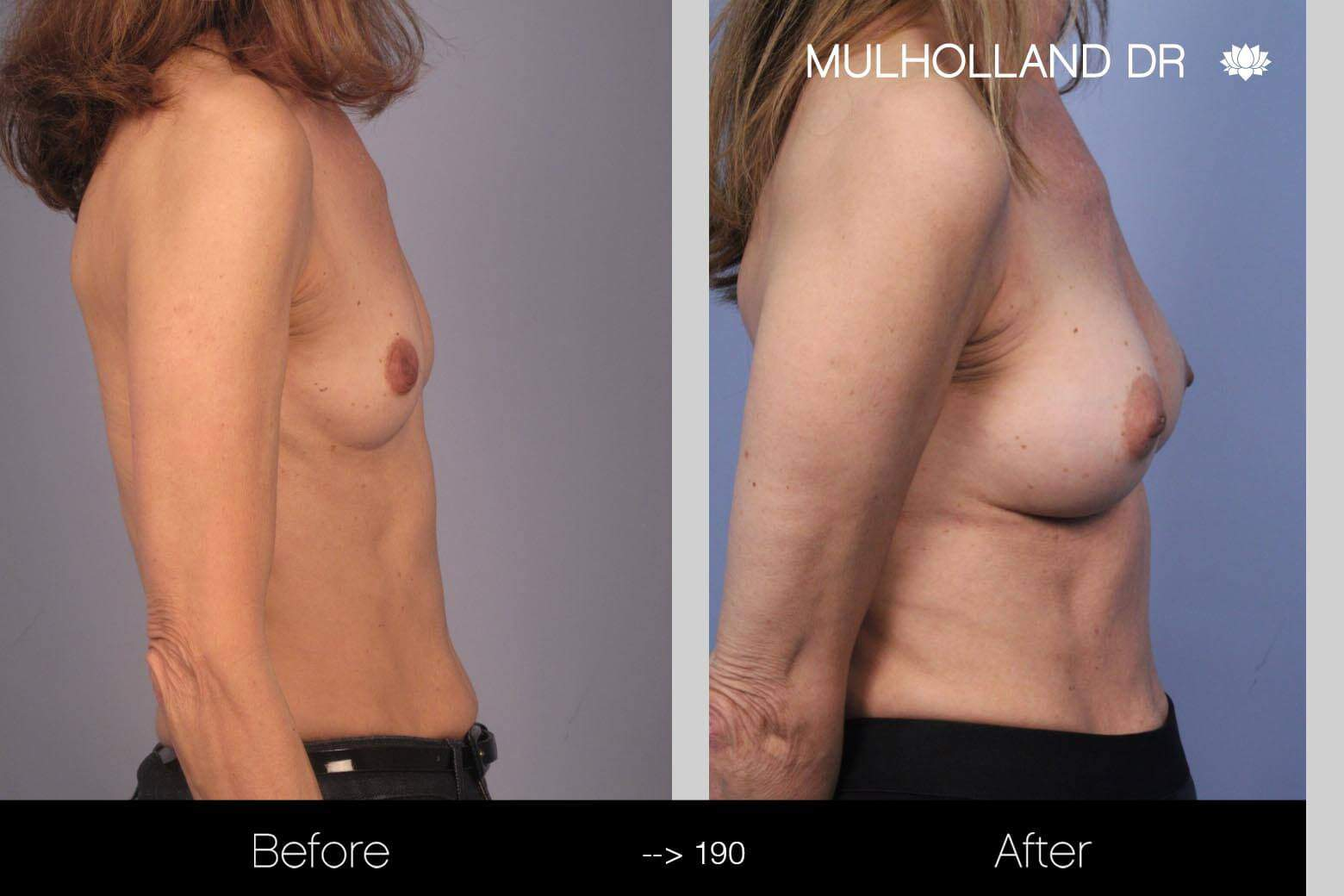 Fat Transfer Breast Augmentation - Before and After Gallery - Patient Photo 10
