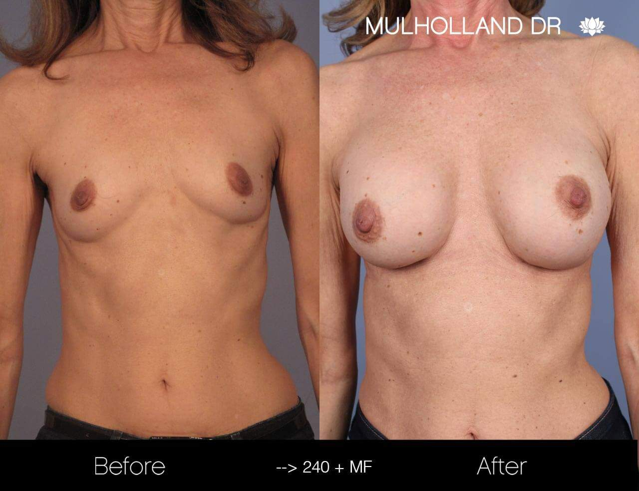 Fat Transfer Breast Augmentation - Before and After Gallery - Patient Photo 11