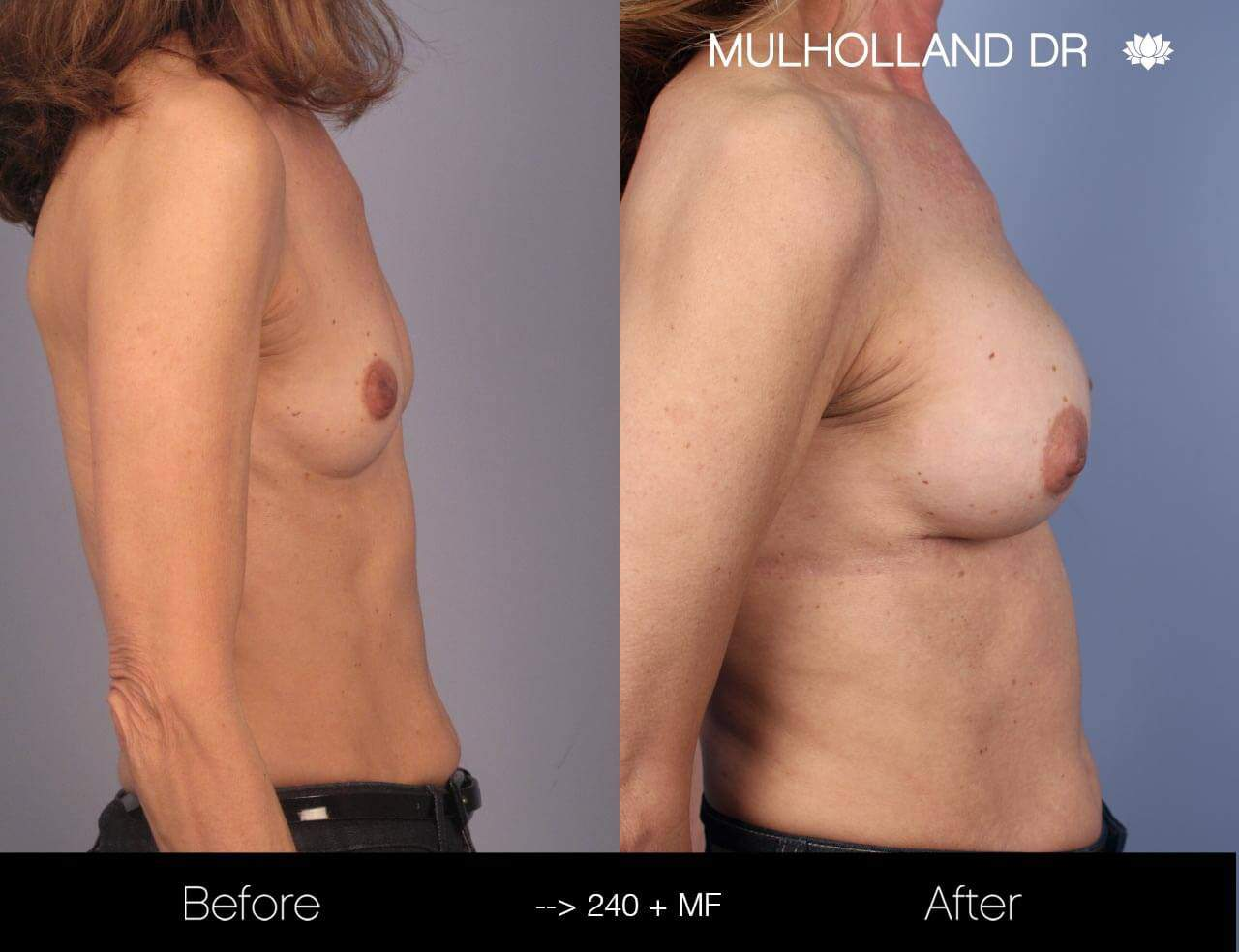 Fat Transfer Breast Augmentation - Before and After Gallery - Patient Photo 12