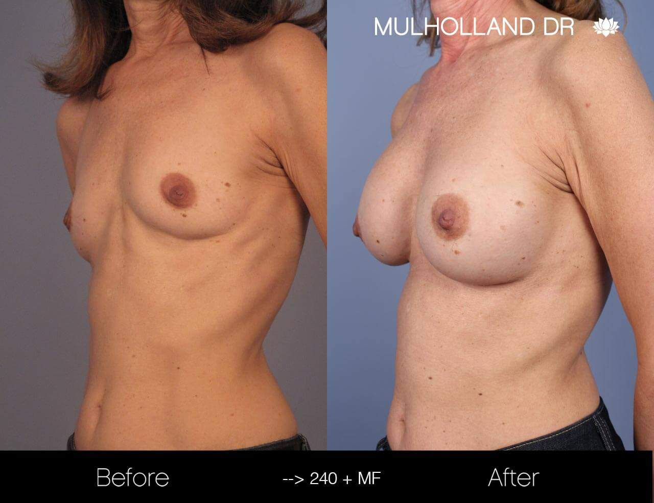 Fat Transfer Breast Augmentation - Before and After Gallery - Patient Photo 14