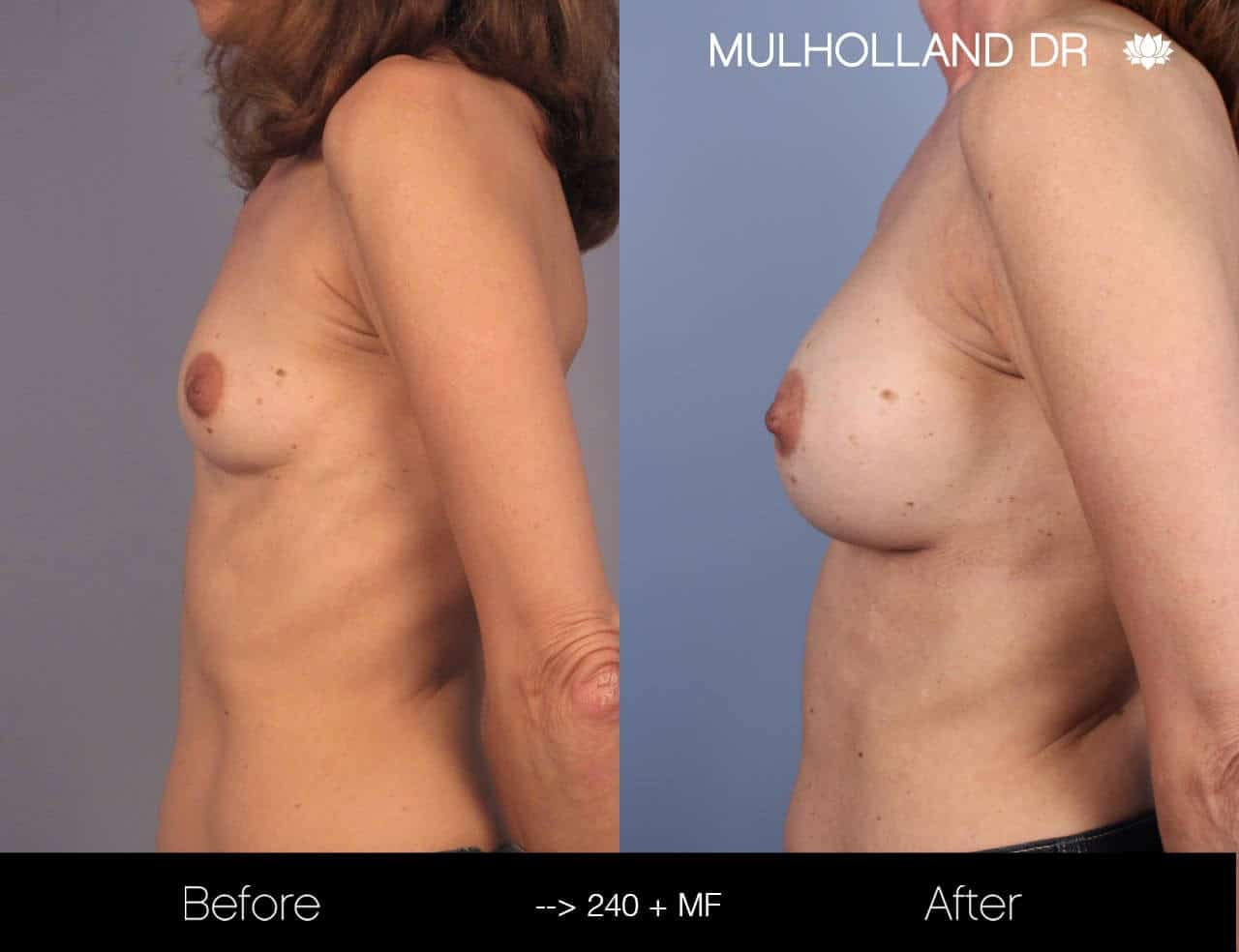 Fat Transfer Breast Augmentation - Before and After Gallery - Patient Photo 15