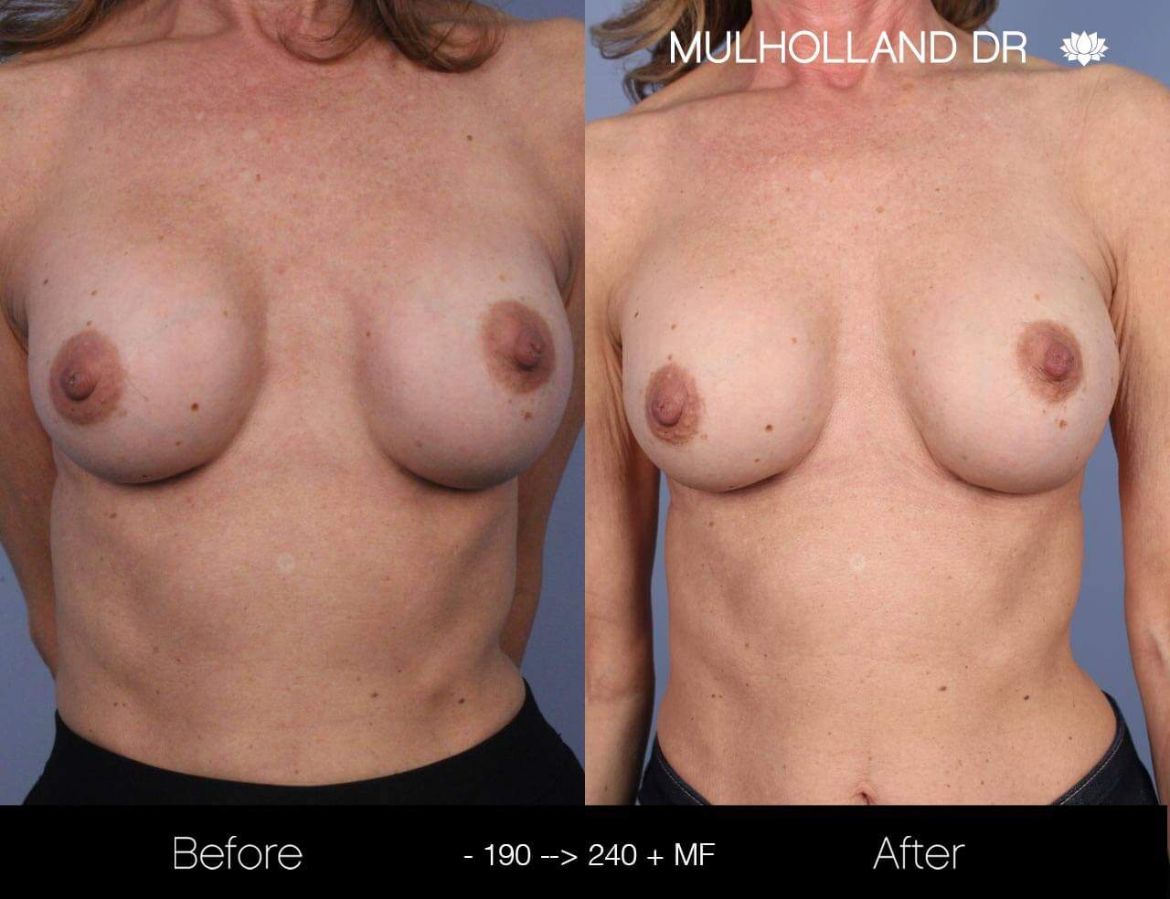 Fat Transfer Breast Augmentation - Before and After Gallery - Patient Photo 16