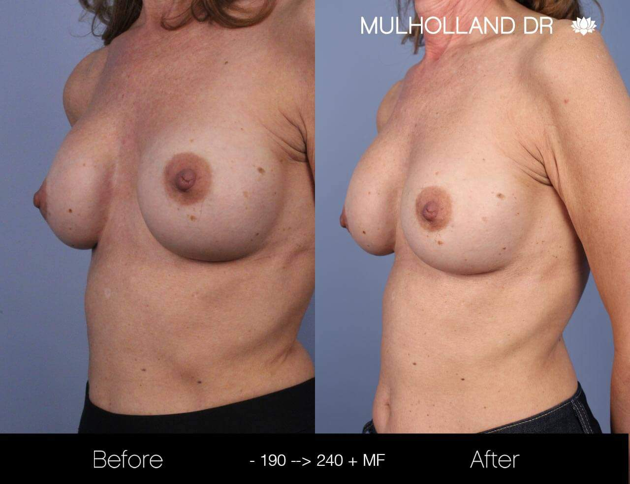 Fat Transfer Breast Augmentation - Before and After Gallery - Patient Photo 17