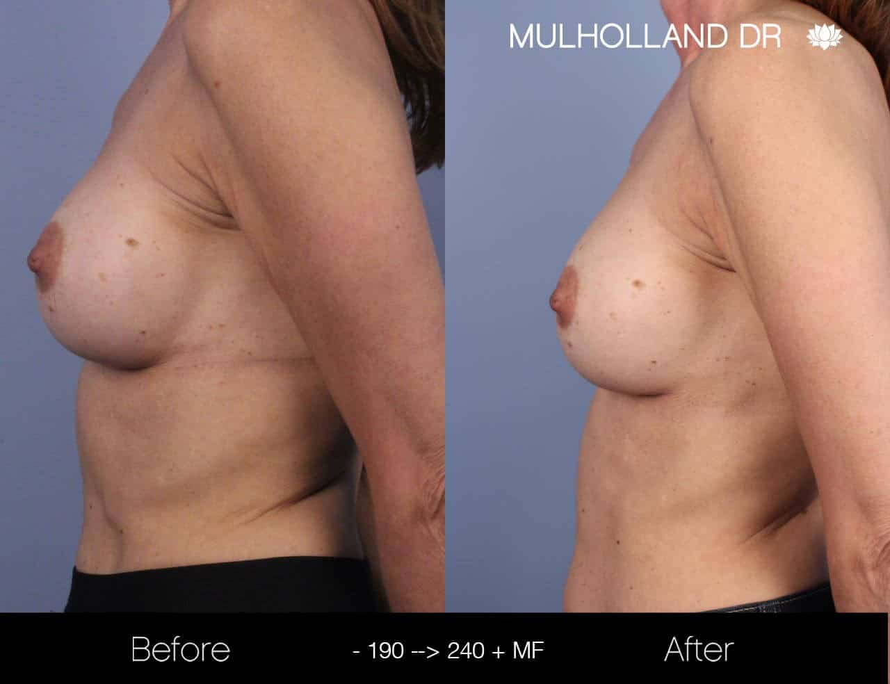 Fat Transfer Breast Augmentation - Before and After Gallery - Patient Photo 18