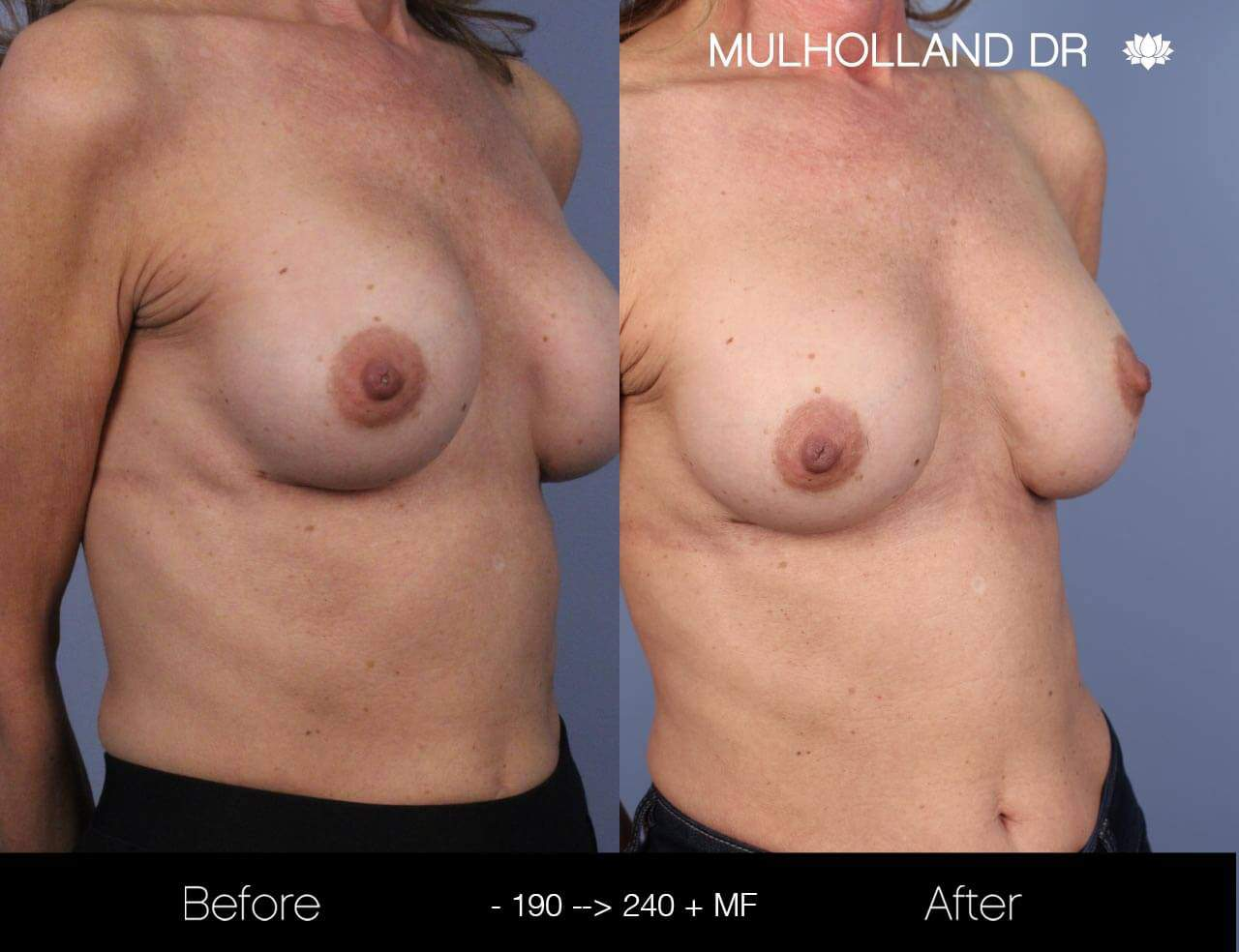 Fat Transfer Breast Augmentation - Before and After Gallery - Patient Photo 19