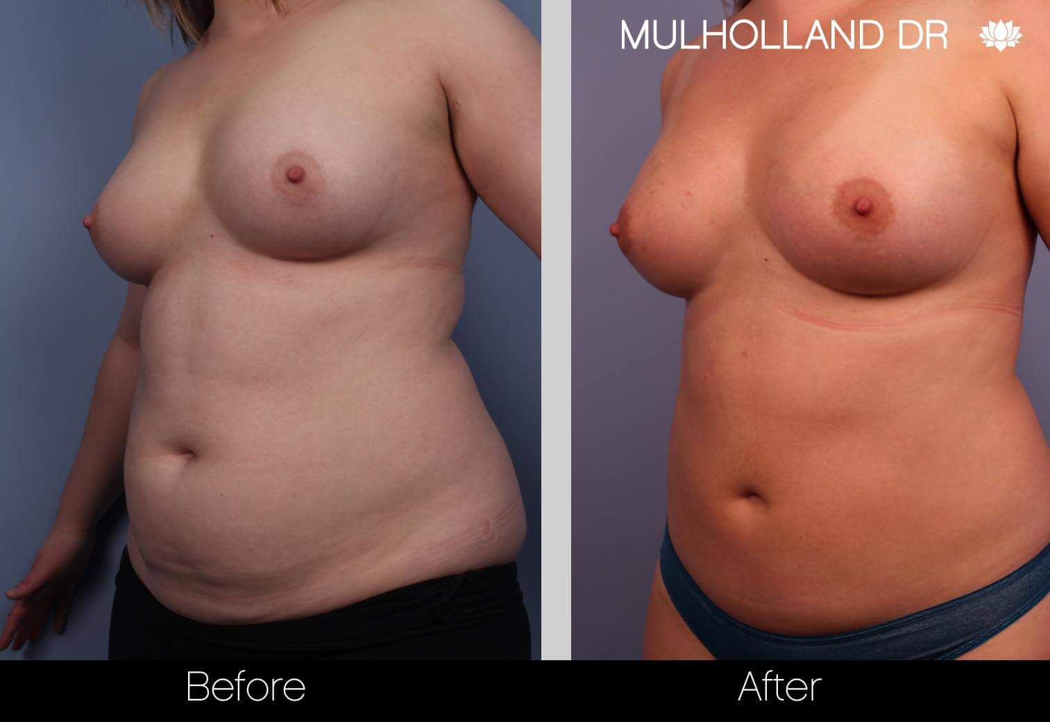 Fat Transfer Breast Augmentation - Before and After Gallery - Patient Photo 2