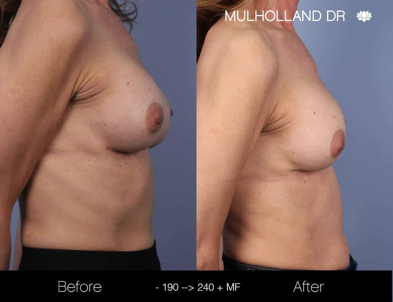 Fat Transfer Breast Augmentation - Before and After Gallery - Patient Photo 20