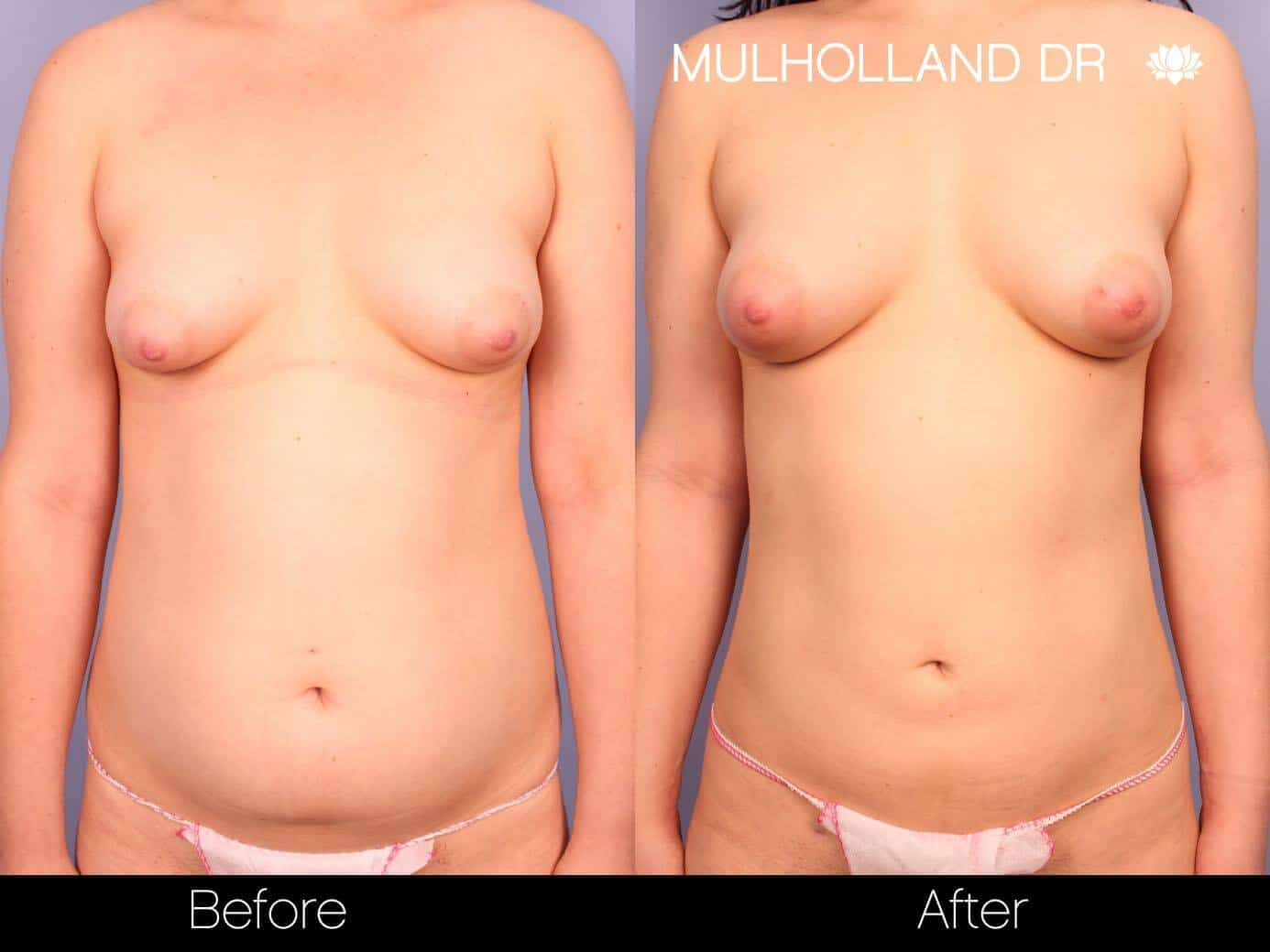 Fat Transfer Breast Augmentation - Before and After Gallery - Patient Photo 21
