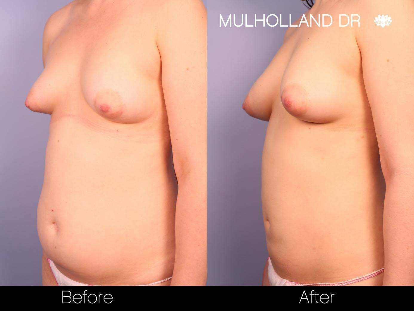 Fat Transfer Breast Augmentation - Before and After Gallery - Patient Photo 22