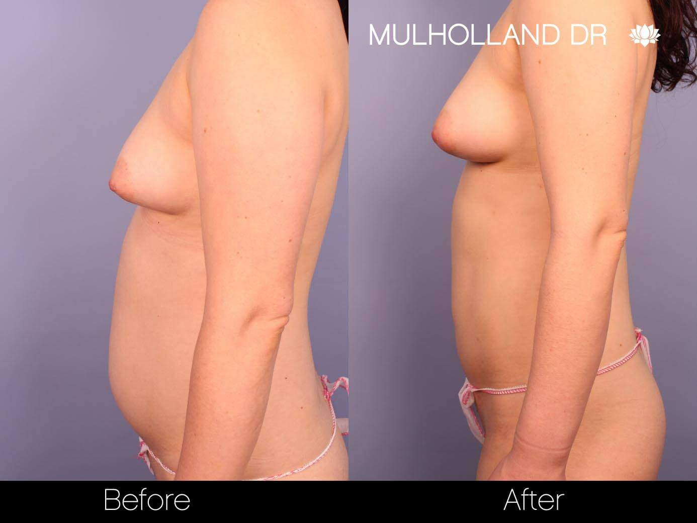 Fat Transfer Breast Augmentation - Before and After Gallery - Patient Photo 23