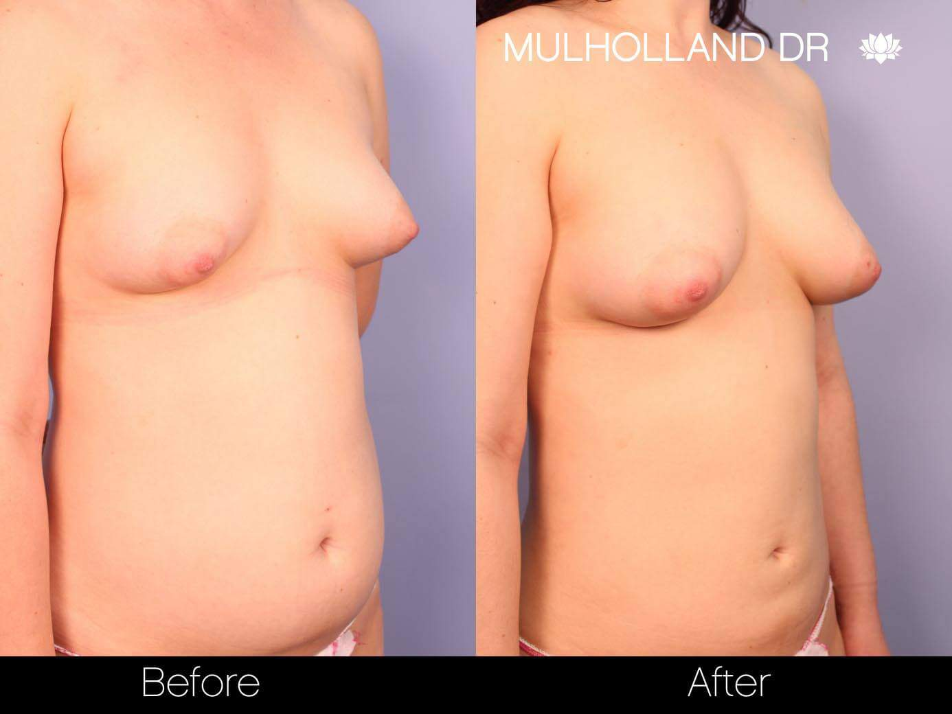 Fat Transfer Breast Augmentation - Before and After Gallery - Patient Photo 24