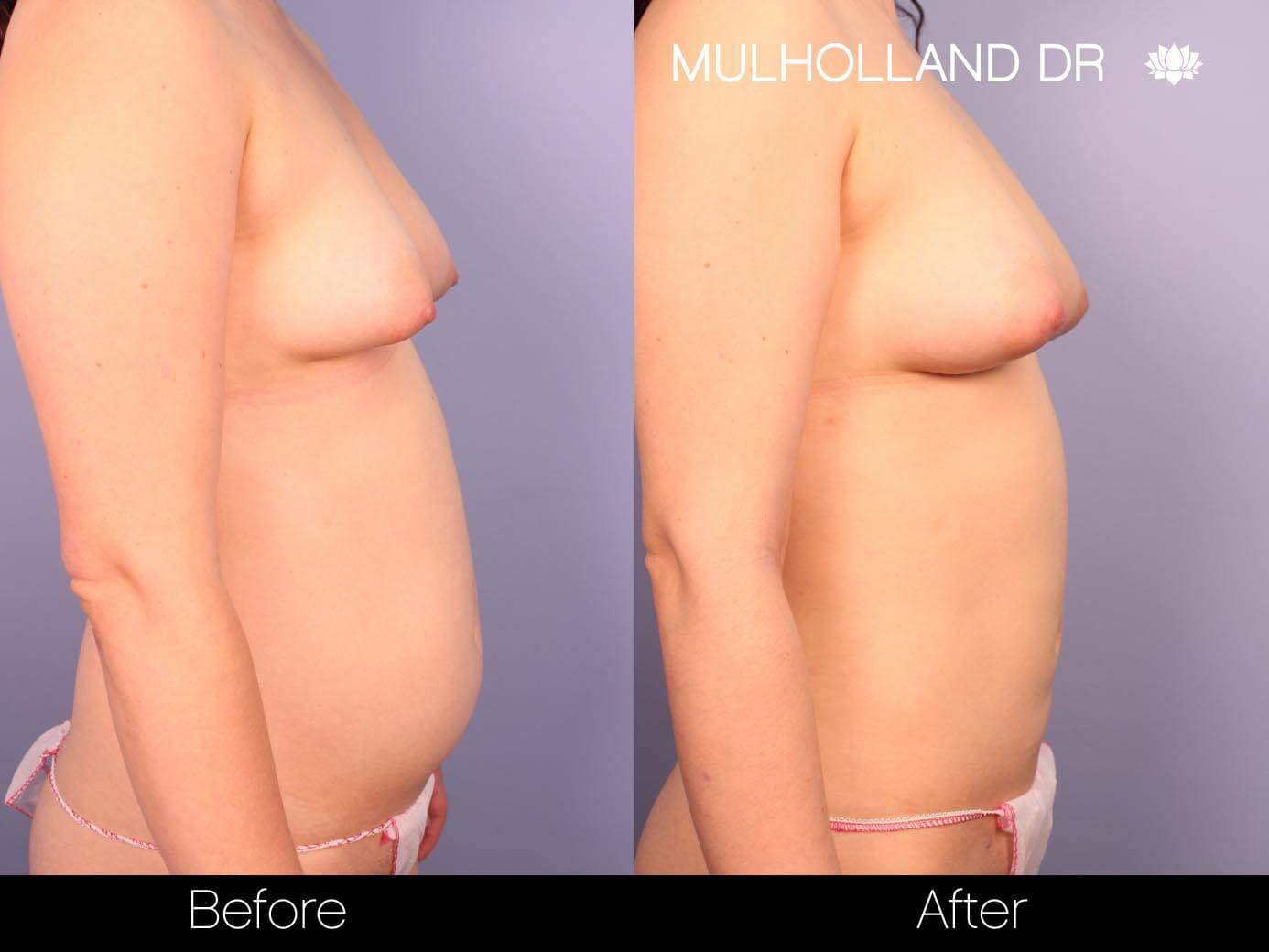 Fat Transfer Breast Augmentation - Before and After Gallery - Patient Photo 25