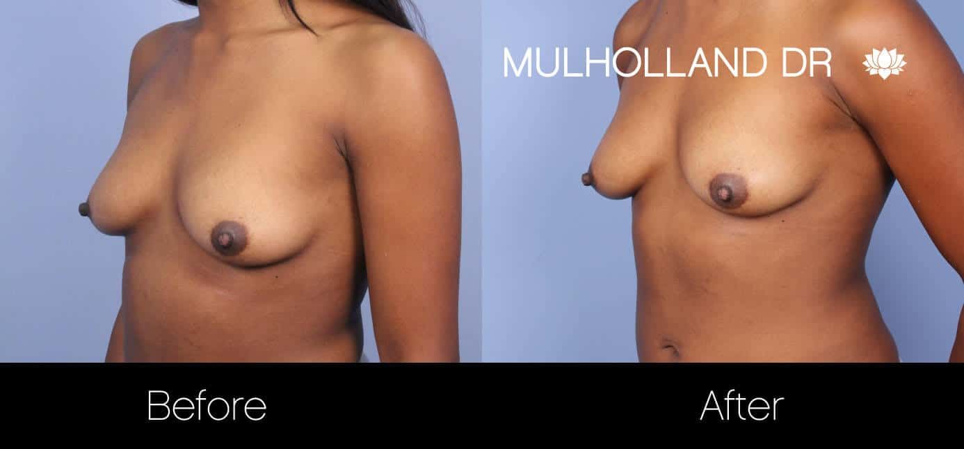Fat Transfer Breast Augmentation - Before and After Gallery - Patient Photo 26
