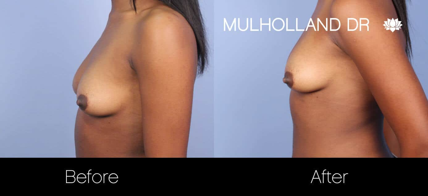 Fat Transfer Breast Augmentation - Before and After Gallery - Patient Photo 27
