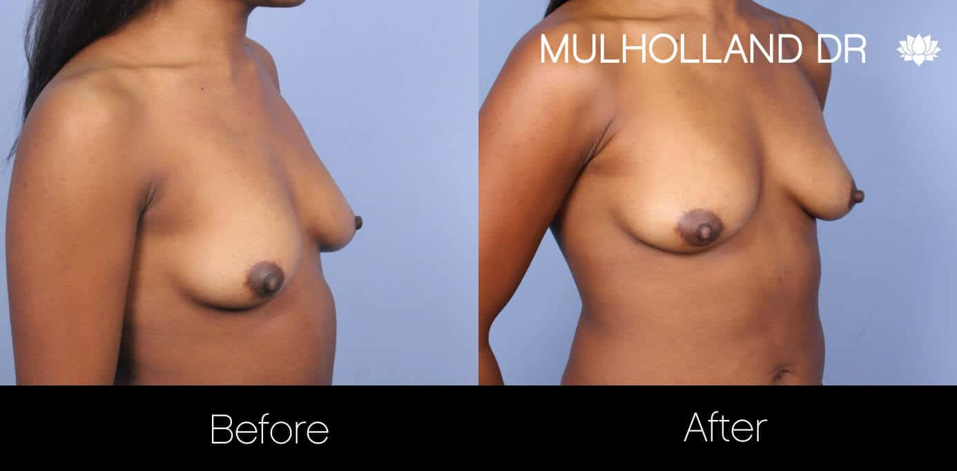 Fat Transfer Breast Augmentation - Before and After Gallery - Patient Photo 28