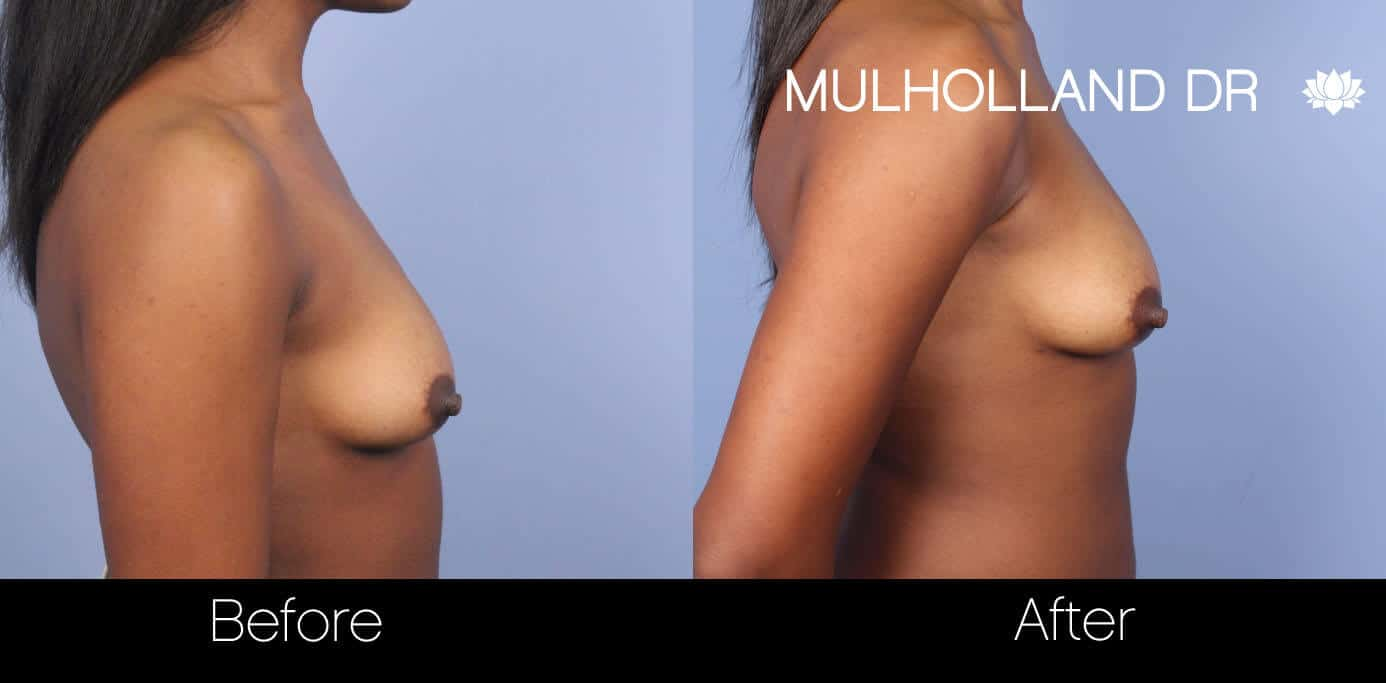 Fat Transfer Breast Augmentation - Before and After Gallery - Patient Photo 29