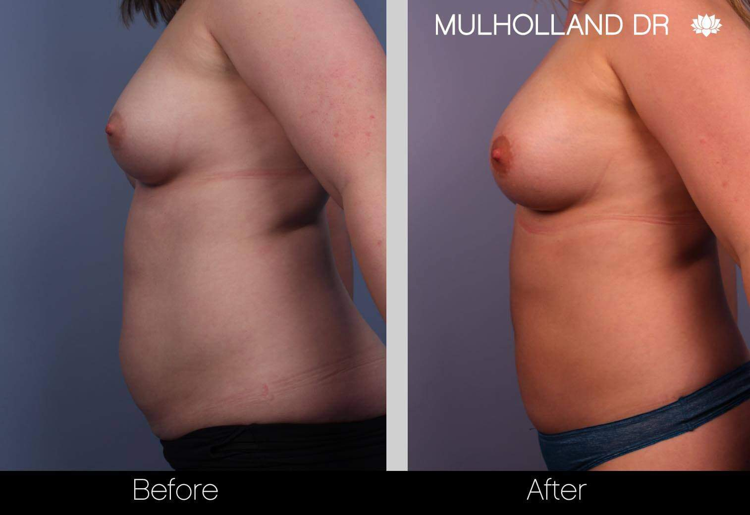 Fat Transfer Breast Augmentation - Before and After Gallery - Patient Photo 3
