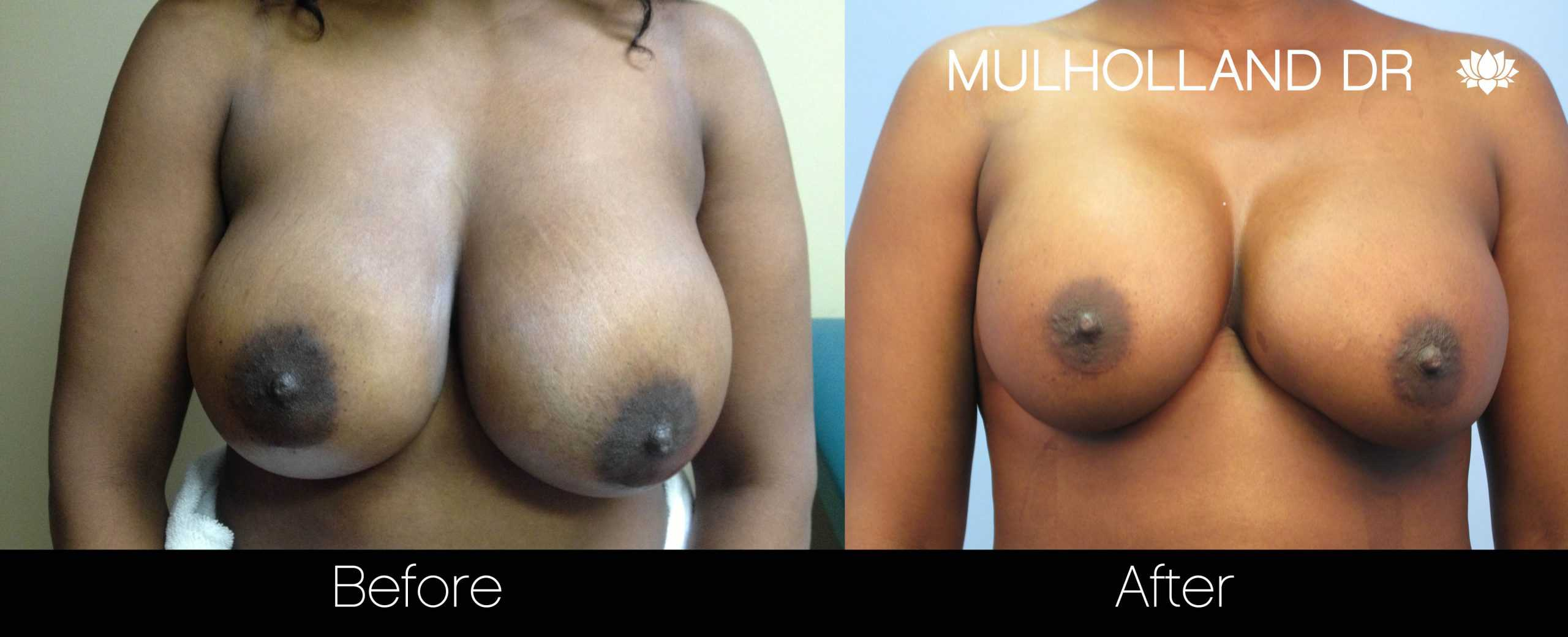 Fat Transfer Breast Augmentation - Before and After Gallery - Patient Photo 30