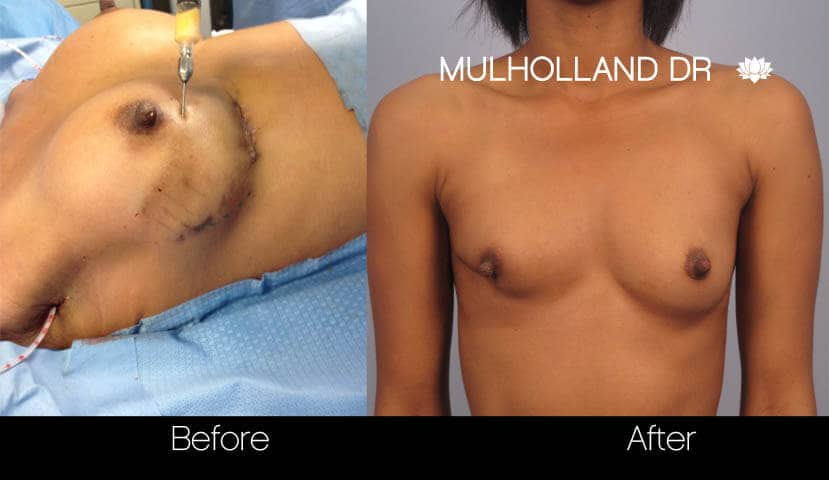 Fat Transfer Breast Augmentation - Before and After Gallery - Patient Photo 31